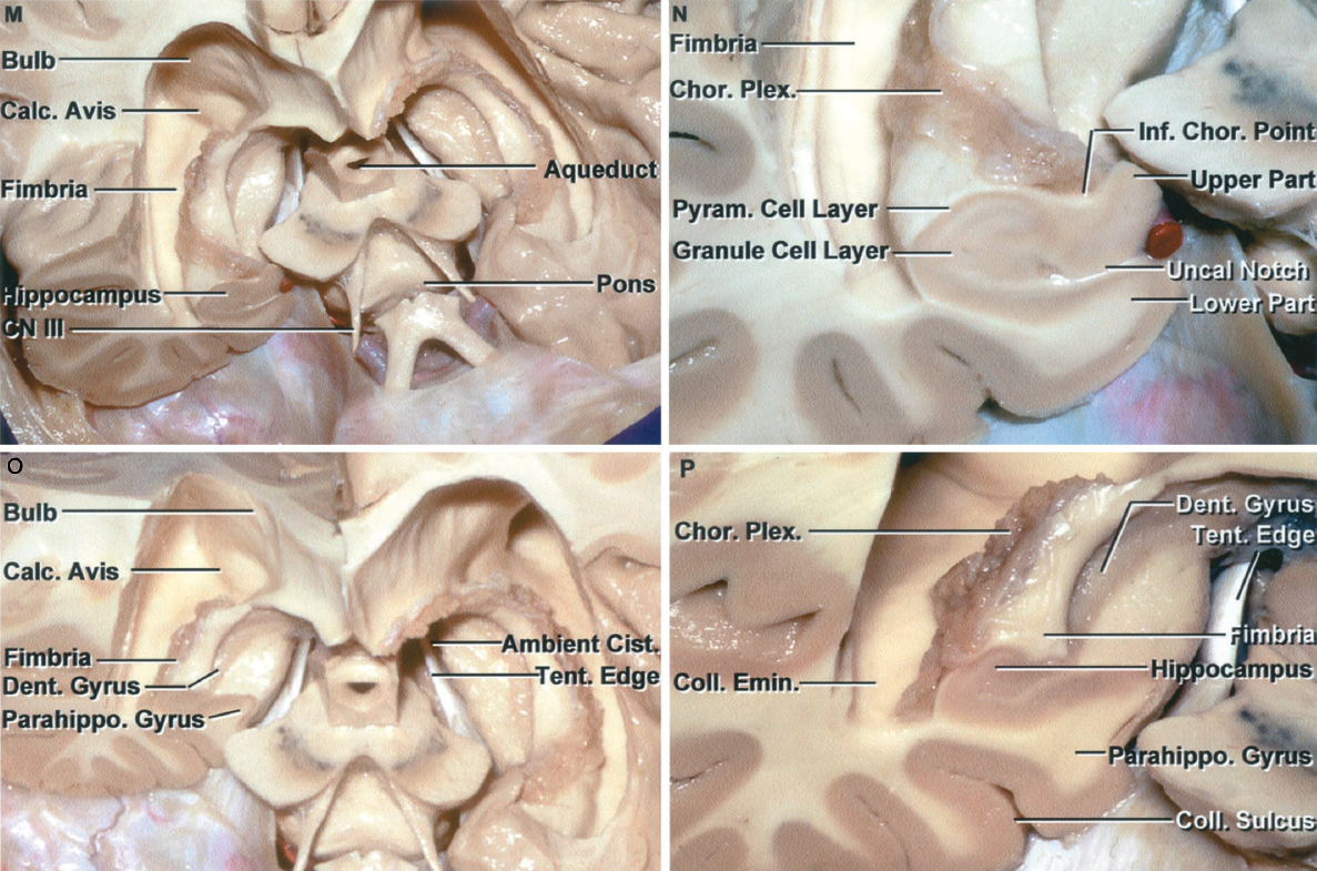 Figure 1.8 M-P. M, oblique anterior view. The cross section of the right temporal lobe crosses the posterior uncal segment. The floor of the third ventricle has been removed back to the level of the aqueduct to expose the interpeduncular fossa located between the cerebral peduncles and above the pons. The posterior part of the floor of the third ventricle is formed by the midbrain. N, enlarged view of the medial part of the posterior segment of the uncus. The posterior uncal segment is divided by an uncal notch into upper and lower parts. The lower part is formed by the parahippocampal gyrus, which is the site of the subicular zones, and the upper part is formed predominantly by the hippocampal head. The inferior choroidal point, the lower end of the choroid plexus and choroidal fissure and the point where the anterior choroidal artery enters the temporal horn is located just behind the head of the hippocampus. The pyramidal and granule cell layers are organized to give the hippocampal formation its characteristic appearance. O, the cross section of the right temporal lobe has been extended back to the level of the midportion of the temporal horn. The ambient cistern is limited medially by the midbrain and laterally by the parahippocampal and dentate gyri. P, enlarged view. The collateral sulcus cuts deeply into the hemisphere and forms a prominence, the collateral eminence in the floor of the temporal horn on the lateral side of the hippocampus. A., artery; Ant., anterior; Calc., calcar; Cap., capsule; Car., carotid; Caud., caudate; Chor., choroid, choroidal; Cist., cistern; CN, cranial nerve; Col., column; Coll., collateral; Comm., commissure; Dent., dentate; Emin., eminence; Ext., external; Fiss., fissure; For., foramen; Gen., geniculate; Glob., globus; Inf., inferior; Int., internal; Lam., lamina; Lat., lateral; Lent., lentiform; Mam., mamillary; Med., medial, medullary; Nucl., nucleus; Olf., olfactory; Pall., pallidus; Parahippo., parahippocampal; Ped., peduncle; Pell., pellucidum; Plex., plexus; Post., posterior; Pyram., pyramidal; Quad., quadrigeminal; Seg., segment; Sept., septum; Sup., superior; Temp., temporal; Tent., tentorial; Term., terminalis; Thal. Str., thalamostriate; Tr., tract; V., vein; Vent., ventricle.