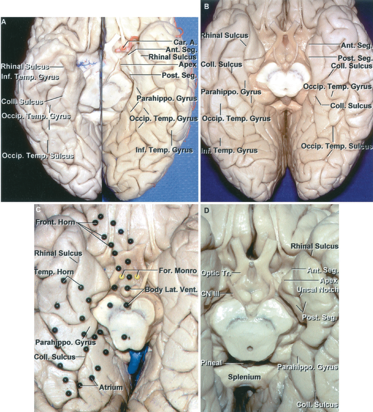 Figure 1.9 A-D. A, basal surface of the temporal and occipital lobes from two different brains. The collateral sulcus separates the parahippocampal and occipitotemporal gyri and extends backward onto the occipital lobe. The parahippocampal gyrus is broken up into several segments on both hemispheres by sulci crossing it from medial to lateral. The occipitotemporal gyri that form the middle strip along the long axis of the basal surfaces are discontinuous, as are the inferior temporal gyri that fold from the convexity around the lower margin of the hemispheres. The rhinal sulci that extend along the lateral margin of the uncus are in continuity with the collateral sulci. B, another cerebrum. The rhinal sulcus on both sides extends along the lateral uncal margin, but is not continuous with the collateral sulcus as in A. The parahippocampal, occipitotemporal, and the inferior temporal gyri are broken up into multiple segments. C, enlarged view. Dark pins outline the position of the lateral ventricle above the basal surface. The frontal horn is located above the posteromedial part of the basal surface of the frontal lobe. The body of the ventricle is located above the midbrain and thalamus. The temporal horn is located above the collateral sulcus and parahippocampal gyrus. There are prominences, the collateral eminence, in the floor of the temporal horn and the collateral trigone, in the floor of the atrium, that overlie the deep end of the collateral sulcus. D, basal surface of another temporal lobe. The uncus has an anterior segment that faces forward toward the carotid cistern and entrance into the sylvian cistern and a posterior segment that faces posteriorly toward the cerebral peduncle and crural cistern. The apex between the anterior and posterior segment is located lateral to the oculomotor nerve. The medial part of the parahippocampal gyrus faces the ambient cistern located between the lateral side of the midbrain and the parahippocampal gyrus. The rhinal sulcus courses along the lateral margin of the anterior part of the uncus and is continuous with the collateral sulcus. The posterior segment of the uncus is divided into an upper and lower part by the uncal notch.