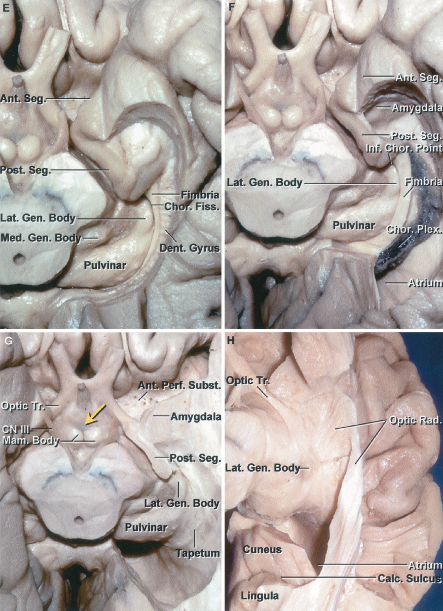 Figure 1.9 E-H. E, the part of the posterior uncal segment below the uncal notch and the medial part of the parahippocampal gyrus have been removed to expose the lower surface of the upper half of the posterior segment that blends posteriorly into the beaded dentate gyrus. The fimbria is exposed above the dentate gyrus. The head of the hippocampus folds into the posterior segment of the uncus. The choroidal fissure located between the thalamus and fimbria extends along the lateral margin of the lateral geniculate body. F, the hippocampus and dentate gyrus have been removed while preserving the fimbria and choroid plexus attached along the choroidal fissure. The choroid plexus is attached on one side to the fimbria and on the opposite side to the lower margin of the thalamus. The amygdala forms the anterior wall of the temporal horn and fills the majority of the anterior segment of the uncus. The inferior choroidal point, the lower end of the choroidal fissure and choroid plexus, is located behind the uncus. G, the fimbria and choroid plexus have been removed to expose the roof of the temporal horn. The lower part of the anterior uncal segment has been removed to expose the amygdala. A small portion of the posterior segment sitting below the optic tract has been preserved. The inferior choroidal point, the most anterior attachment of the choroid plexus in the temporal horn and the lower end of the choroidal fissure, is located behind the head of the hippocampus in front of the lateral geniculate body and at the posterior edge of the cerebral peduncle. The tapetum of the corpus callosum forms the roof and lateral wall of the atrium. H, the tapetum fibers have been removed to expose the fibers of the optic radiation arising from the lateral geniculate body and passing across the roof and around the lateral wall of the temporal horn and the lateral wall of the atrium. Only a thin layer of tapetal fibers separate the optic radiations from the temporal horn and atrium as they pass posteriorly to reach the calcarine sulcus. The cuneus forms the upper bank and the lingula forms the lower bank of the calcarine sulcus. A., artery; Ant., anterior; Calc., calcarine; Car., carotid; Chor., choroid, choroidal; CN, cranial nerve; Coll., collateral; Dent., dentate; Fiss., fissure; For., foramen; Front., frontal; Gen., geniculate; Inf., inferior; Lat., lateral; Mam., mamillary; Med., medial; Occip., occipital; Parahippo., parahippocampal; Perf., perforated; Plex., plexus; Post., posterior; Rad., radiation; Seg., segment; Subst., substance; Temp., temporal; Tr., tract; Vent., ventricle.