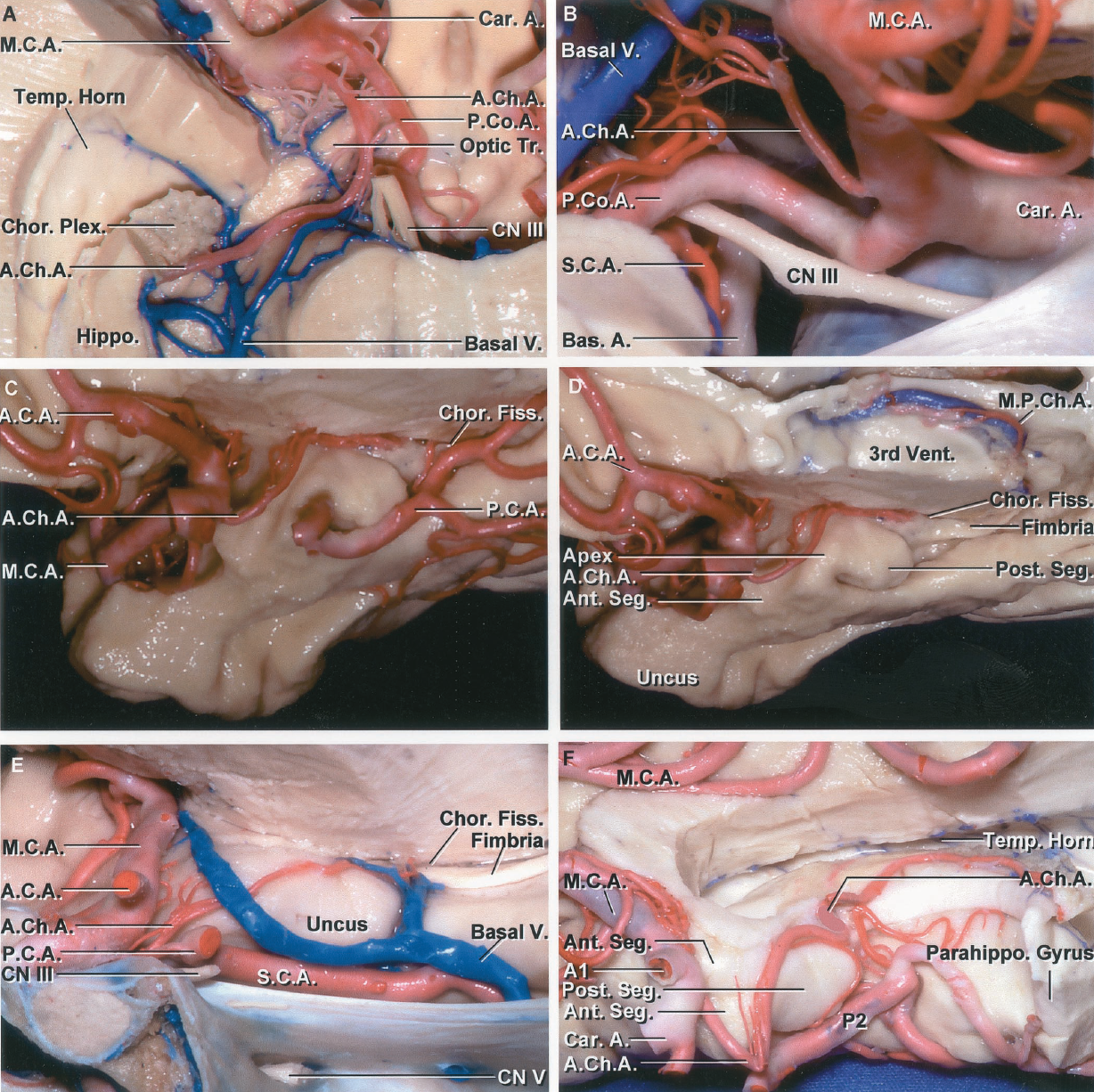 FIGURE 2.10. Anterior choroidal artery. A, inferior view. The lower part of the right temporal pole has been removed to expose the AChA, which passes backward to reach the medial side of the optic tract where it turns laterally, passing again below the optic tract and around the uncus to enter the temporal horn. B, lateral view. The right AChA arises above the origin of the PComA and passes upward and backward around the uncus to reach the temporal horn. C, medial side of the right uncus. The AChA passes around the medial aspect of the uncus to reach the lower end of the choroidal fissure where it enters the temporal horn. The PCA courses along the posterior aspect of the uncus. D, the PCA has been removed. The AChA ascends along the anterior segment of the uncus to reach the uncal apex where it turns laterally above the posterior uncal segment to enter the inferior choroidal point at the lower end of the choroidal fissure located just behind the posterior uncal segment and the head of the hippocampus. The anterior uncal segment contains the amygdala and the posterior segment is formed predominantly by the head of the hippocampus. E, medial view of the right AChA in another specimen. The cross section extends through the midline of the sella. The view is directed laterally over the top of the sella to the medial aspect of the internal carotid artery, uncus, and the origin of the AChA. The AChA passes around the uncus to reach the lower end of the choroidal fissure. F, medial view of another temporal lobe. The AChA pursues an angulated course, descending along the anterior segment of the uncus, but at the uncal apex it turns sharply upward, reaching the upper part of the posterior uncal segment before entering the temporal horn. A., artery; A.C.A., anterior cerebral artery; A.Ch.A., anterior choroidal artery; Ant., anterior; Bas., basilar; Car., carotid; Chor., choroid, choroidal; CN, cranial nerve; Fiss., fissure; Hippo., hippocampus; M.C.A., middle cerebral artery;