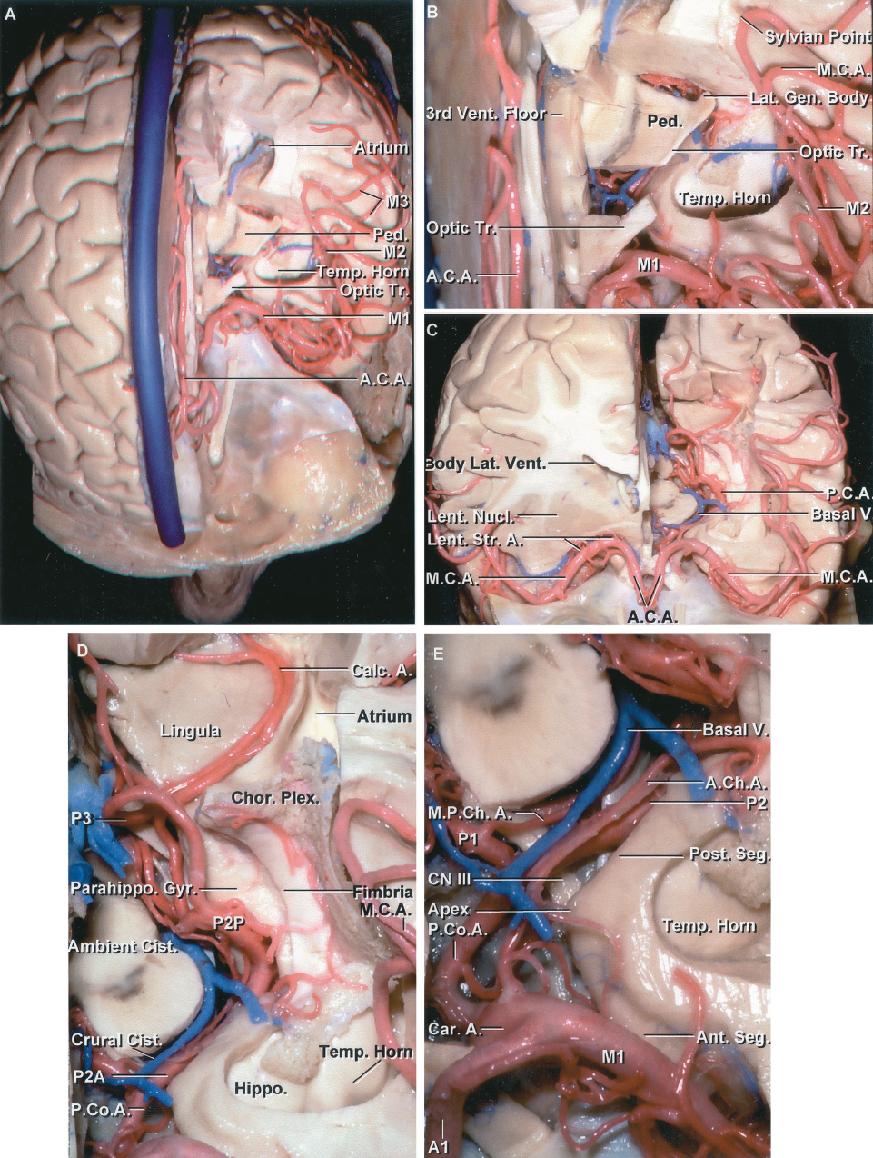 FIGURE 2.12 A-E. Cerebral arteries, superior view. A, the upper part of the left hemisphere has been removed to expose the atrium and temporal horn. Part of the optic tract and cerebral peduncle has been preserved. The ACA crosses above the chiasm and along the medial surface of the hemisphere. The MCA passes laterally below the anterior perforated substance and turns posteriorly in the depths of the sylvian fissure on the medial side of the opercular lips. The M1 segment courses below the anterior perforated substance and ends at the limen insula, the M2 segment crosses the insular, the M3 crosses the opercular lips, and the M4 branches course on the lateral convexity. B, enlarged view. The initial segment of the optic tract has been preserved. The MCA courses laterally in the area above and anterior to the temporal pole and turns posteriorly in the sylvian fissure. The sylvian point, the site at which the last MCA turns away from the insula, coincides with the point where the most posterior of the transverse temporal gyri intersect the insula. The PCA is hidden below the optic tract and cerebral peduncle. C, the anterior part of the right hemisphere has been removed to show the symmetry of the MCAs. Lenticulostriate arteries are exposed below the lentiform nucleus. The upper part of the left cerebral peduncle and optic tract has been removed to expose the PCA and basal veins in the crural and ambient cisterns. D, enlarged view. The P2 arises at the level of the PComA and passes around the brainstem. The anterior part of the P2, the part that passes through the crural cistern, is designated the P2A, or crural segment, and the posterior part that courses in the ambient cistern is designated the P2P, or ambient segment. The P3 is located in the quadrigeminal cistern and the P4 segment consists of the cortical branches. The calcarine branch courses deeply within the calcarine sulcus, roofed above by the cuneus, which has been removed to exposed the floor of the calcar