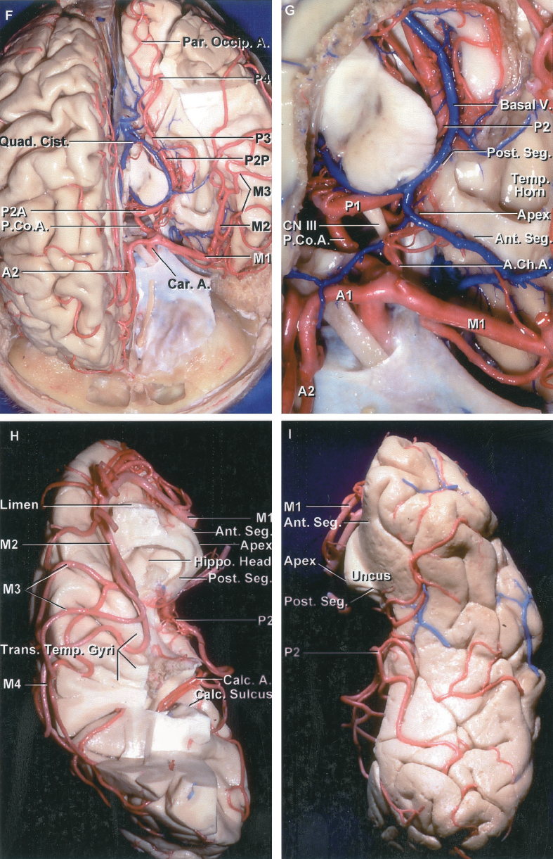 FIGURE 2.12 F-I.F, another specimen in which the anterior portion of the hemisphere has been removed to expose the temporal horn. The M1, M2, and M3 and the P2A, P2P, P3, and P4 have been exposed. The branches of the PCA pass back to the occipital pole. G, enlarged view. The anterior segment of the uncus faces the carotid, middle cerebral, anterior choroidal, and posterior communicating arteries. The posterior segment of the uncus, which forms the lateral margin of the crural cistern, faces the P2A, the basal terminal part of the AChA and the uncal apex is located lateral to the oculomotor nerve. The basal vein courses above the PCA. H, upper surface of the temporal and occipital lobes. The M1 courses along the stem of the sylvian fissure below the anterior perforated substance. The M2 begins at the limen insula and courses over the surface of the insula. The M3 courses over the opercular lips. The M4 is distributed to the cortical surface. The P2 has been preserved. It courses medial to the posterior segment of the uncus and parahippocampal gyrus and through the crural and ambient cisterns. The calcarine branch courses deep in the calcarine sulcus on the medial side of the atrium. I, inferior surface of the temporal lobe. The P2 branches are distributed to the inferior and the lower part of the lateral surfaces of the temporal and occipital lobes. The M1 courses above the anterior uncal segment. A., arteries, artery; A.C.A., anterior cerebral artery; A.Ch.A., anterior choroidal artery; Ant., anterior; Calc., calcarine; Car., carotid; Chor., choroid; Cist., cistern; CN, cranial nerve; Gen., geniculate; Gyr., gyrus; Hippo., hippocampal, hippocampus; Lat., lateral; Lent., lentiform; Lent. Str., lenticulostriate; M.C.A., middle cerebral artery; M.P.Ch.A., medial posterior choroidal artery; Nucl., nucleus; P.C.A., posterior cerebral artery; P.Co.A., posterior communicating artery; Par. Occip., parieto-occipital; Parahippo., parahippocampal; Ped., peduncle; Plex., plexus