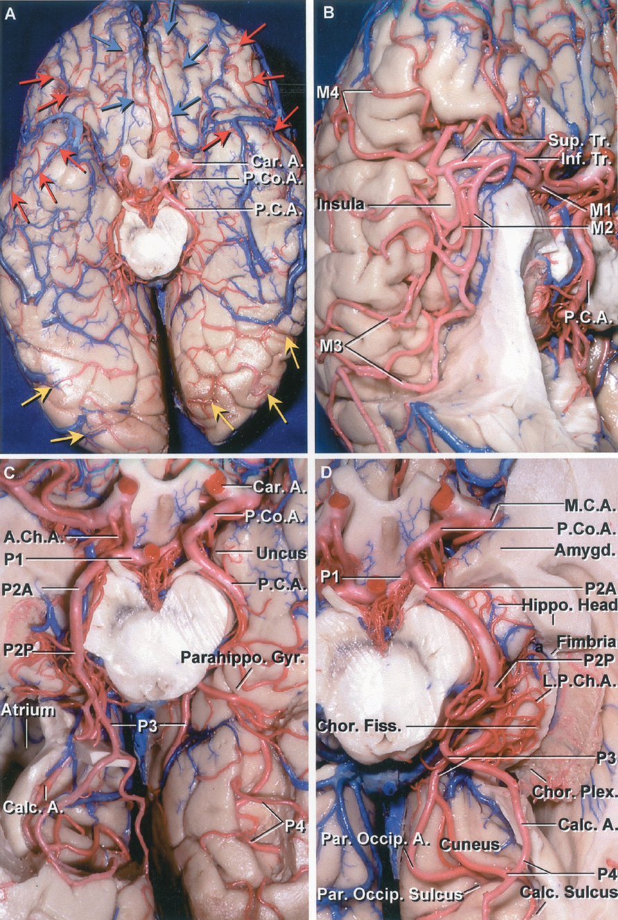 FIGURE 2.13 A-D. Arteries of the basal surface. A, inferior view of the basal surface of the frontal, temporal, and occipital lobes. The orbital surface of the frontal lobe is supplied by the ACA and MCA. The branches of the ACA overlap from the interhemispheric fissure onto the adjacent part of the orbital surface of the frontal lobe (blue arrows) and the MCA branches overlap onto the lateral part of the orbital surface (red arrows). Most of the lower surface of the temporal and occipital lobes is supplied by the PCA; however, branches of the MCA overlap onto the basal surface of the temporal pole and adjacent part of the temporal lobe (red arrows). Branches of the PCA (yellow arrows) extend around the occipital pole lower hemispheric margin to reach the lateral surface of the temporal and occipital lobe (yellow arrows). B, the temporal lobe has been removed to expose the M1 bifurcating into superior and inferior trunks below the anterior perforated substance and passing across the insula and the frontoparietal operculi. The superior trunk supplies most of the lateral surface of the frontal lobe and the inferior trunk supplies most of the lateral surface of the parietal and temporal lobe. The M1 courses below the anterior perforated substance, the M2 courses on the insula, the M3 passes around the opercular lips, and the M4 is formed by the cortical branches. C, the PCAs arise in the interpeduncular cistern in front of the brainstem and pass through the crural cistern, located between the uncus and cerebral peduncle, and the ambient cistern, located between the midbrain and parahippocampal gyrus, to reach the quadrigeminal cisterns. The P2 segment courses in the crural and ambient cisterns, the P3 in the quadrigeminal cistern, and the P4 is the cortical segment. The P2 is divided into a P2A that courses in the crural cistern and a P2P that courses in the ambient cistern. The floor of the right atrium and the lower lip of the calcarine sulcus have been removed to ex