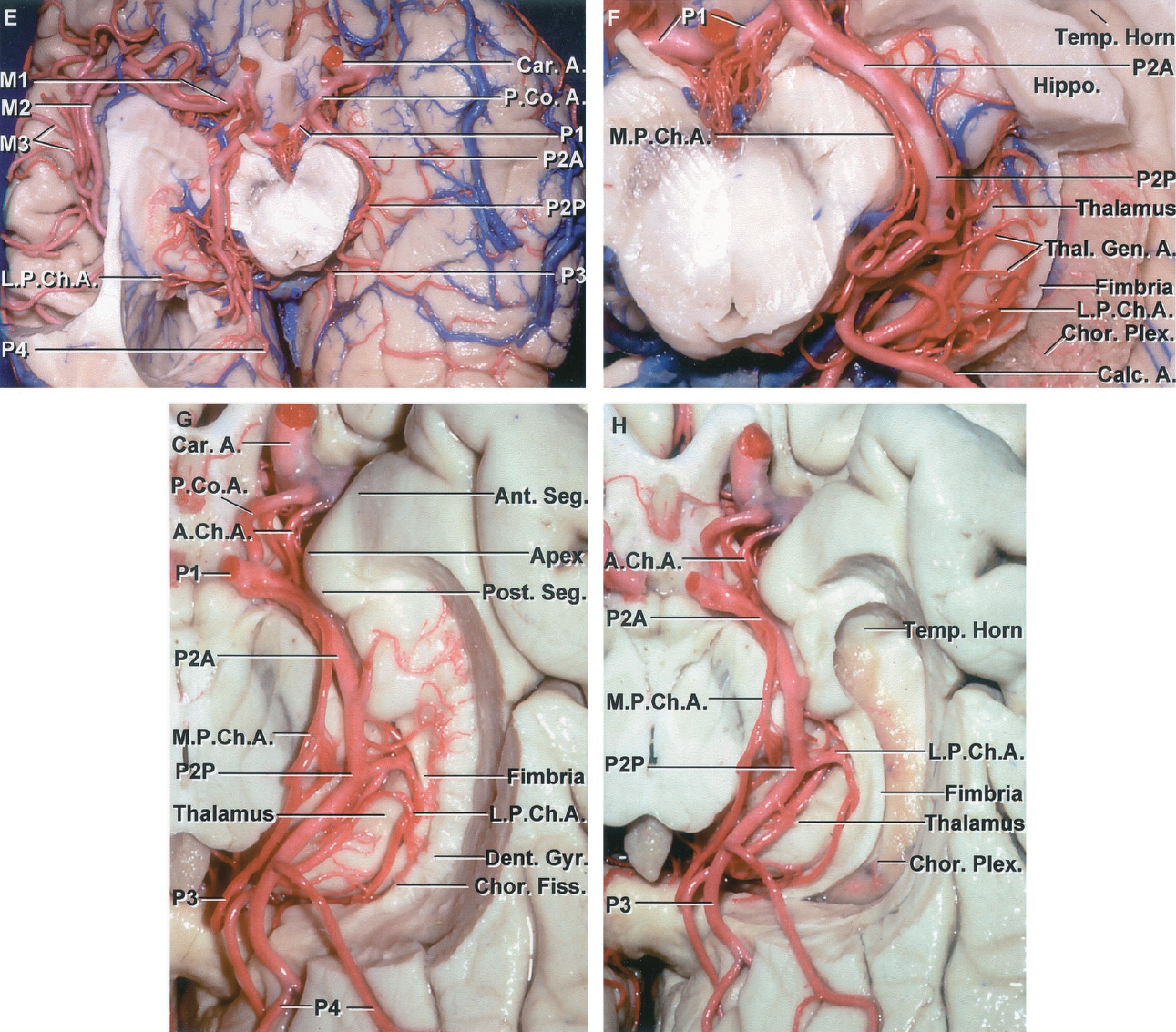 FIGURE 2.13 E-H.E, inferior surface of both cerebral hemispheres showing the MCA coursing along the sylvian cistern and the PCAs coursing through the crural, ambient, and quadrigeminal cisterns. F, enlarged view of the P2P coursing below the thalamus, which forms the roof of the ambient cistern. The left temporal horn has been opened by removing part of the floor. Some of the head of the hippocampus has been preserved. The P2P gives rise to a complex arborizing group of perforating arteries that enter the lower thalamus, some passing through the geniculate bodies, and constituting the thalamogeniculate arteries. G, inferior view of another cerebral hemisphere. The medial part of the parahippocampal gyrus has been removed to expose the PCA coursing through the crural, ambient, and quadrigeminal cisterns. The AChA courses around the uncus. The uncus has an anterior segment that faces the carotid, middle cerebral, anterior choroidal, and posterior communicating arteries, and a posterior segment that faces the posterior cerebral and the terminal segment of the AChA. The choroidal fissure is located between fimbria of the fornix and the lower surface of the thalamus and has its lower end just behind the posterior uncal segment. The LPChA pass laterally through the choroidal fissure located between the fimbria and the thalamus. The dentate gyrus is located below the fimbria. A MPChA courses medial to the PCA. H, the dentate gyrus and adjacent part of the parahippocampal gyrus has been removed to expose the choroid plexus in the temporal horn. The LPChAs pass laterally between the fimbria and the lower margin of the thalamus, formed in part by the lateral geniculate body and pulvinar, to reach the choroid plexus in the temporal horn and atrium. A., artery; A.Ch.A., anterior choroidal artery; Amygd., amygdala; Ant., anterior; Calc., calcarine; Car., carotid; Chor., choroid, choroidal; Dent., dentate; Fiss., fissure; Gyr., gyrus; Hippo., hippocampal, hippocampus; Inf., infer