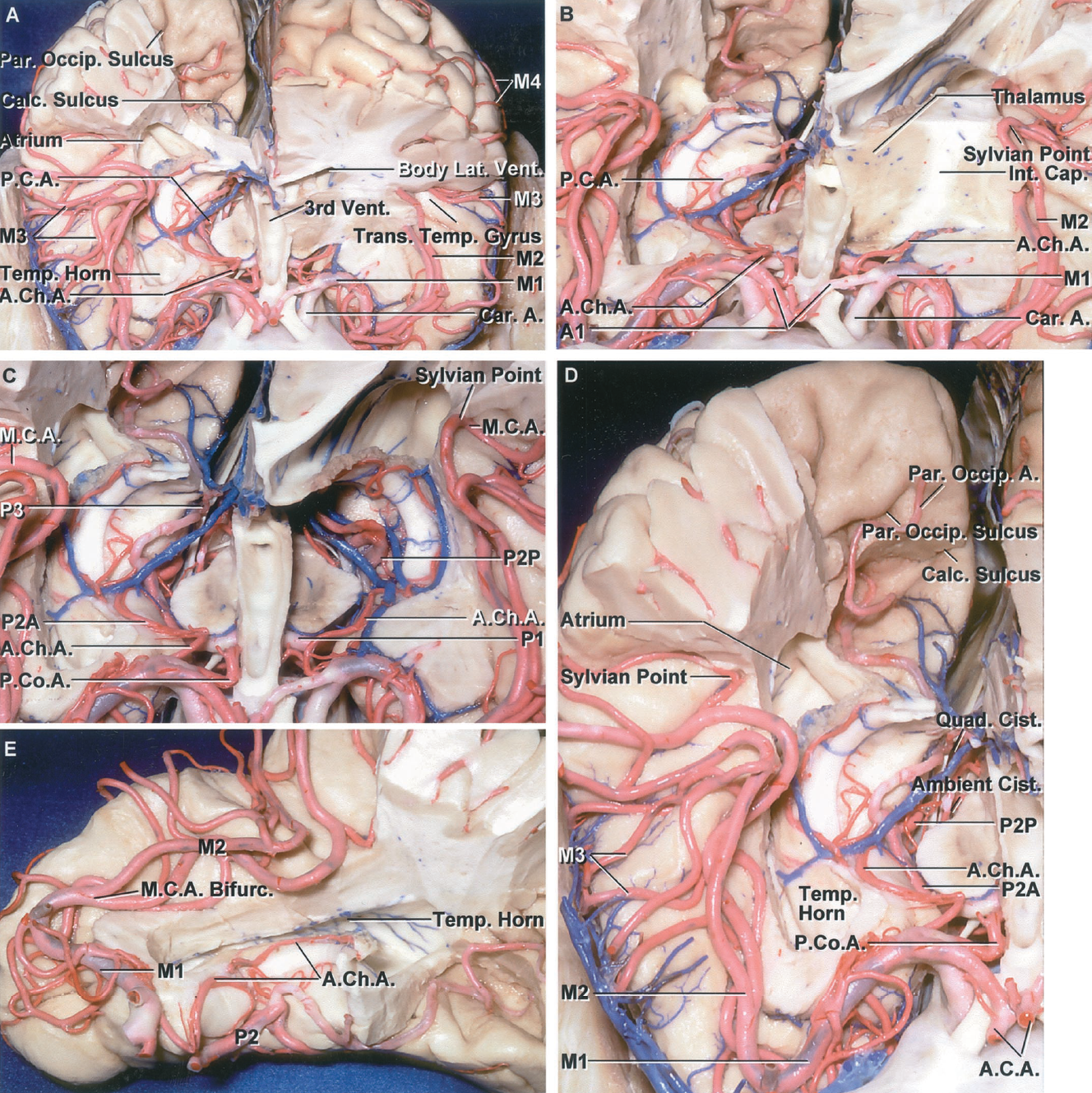 FIGURE 2.14. Superior views of the cerebral arteries. A, the upper part of the right cerebral hemisphere has been removed to expose the temporal horn, atrium, and the basal cisterns. The part of the left hemisphere anterior to the midportion of the body of the lateral and above the sylvian fissure has been removed. The ICAs ascend on the lateral side of the optic nerves. The MCAs travel laterally in the sylvian fissures. The M1 crosses below the anterior perforated substance. The trunks of the M2 cross the insula and the M3 extends around the opercular lips. The M4 is formed by the cortical branches on the convexity. The PCAs pass posteriorly in the crural and ambient cisterns to reach the quadrigeminal cistern. The ACA passes above the optic chiasm. The floor of the third ventricle and the calcarine and parieto-occipital sulcus have been exposed. The upper lip of the parieto-occipital sulcus formed by the precuneus has been removed. The lower lip of the parieto-occipital sulcus is formed by the cuneus, which also forms the upper lip of the calcarine sulcus. B, enlarged view. The AChAs enter the choroid plexus in the temporal horn. The sylvian point is located where the most posterior branch of the M2 turns away from the insular surface and toward the lateral convexity. C, the anterior part of the left hemisphere has been removed down to the level of the temporal lobe and the midbrain. The AChAs pass around the upper medial part of the uncus to reach the temporal horn. P2A courses medial to the uncus in the crural cistern, the P2P courses in the ambient cistern, and the P3 courses in the quadrigeminal cistern. D, enlarged view. The M2 crosses the insula just above and lateral to the temporal horn. The artery forming the sylvian point often has its apex directed medially toward the atrium. The parieto-occipital branch of the PCA courses along the parieto-occipital sulcus. The calcarine branch is directed backward in the calcarine sulcus. E, the right temporal lobe ha