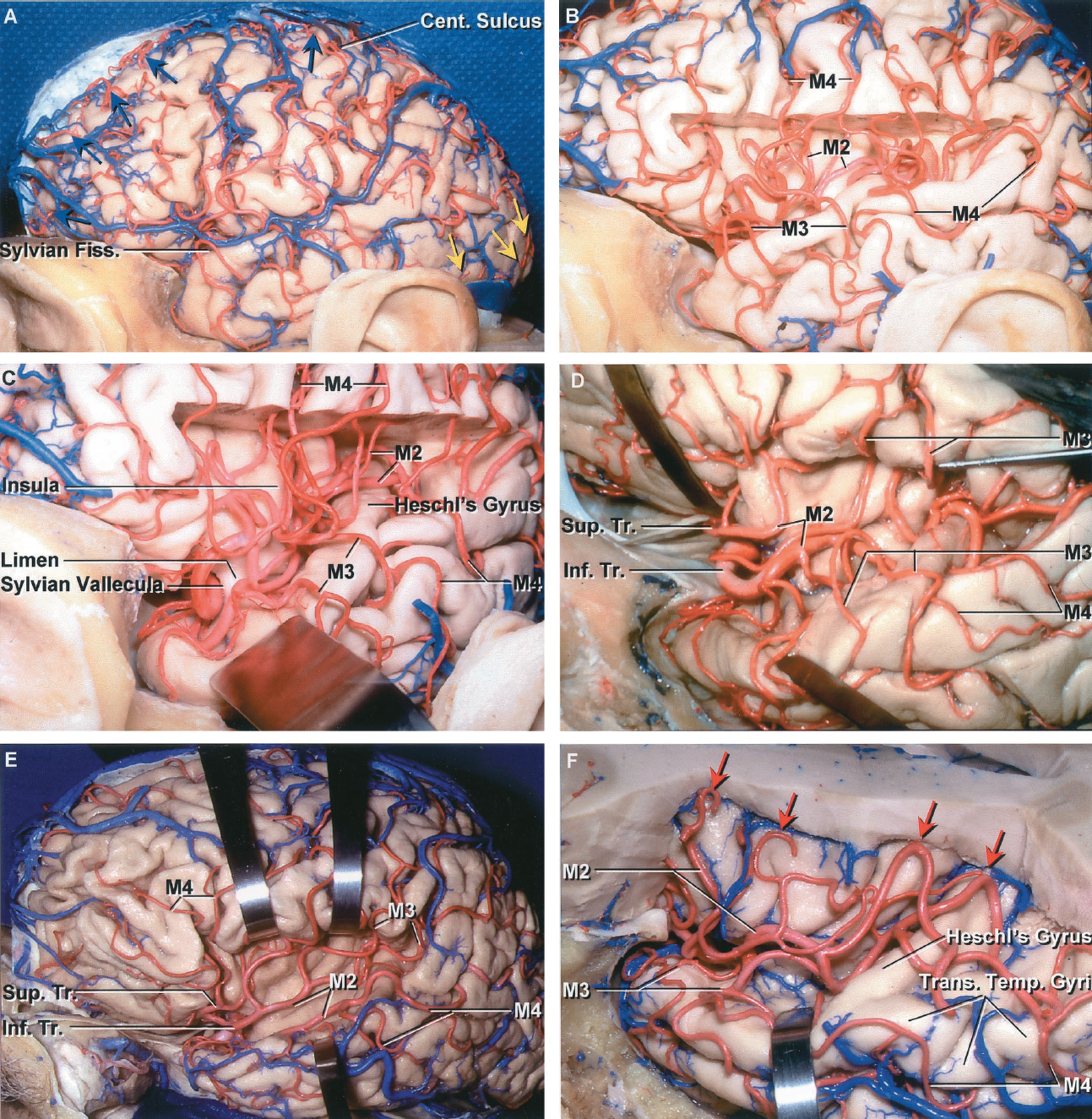 FIGURE 2.15. The insula and middle cerebral arteries. A, left side. The cortical branches of the MCA, which form the M4, spread out from the sylvian fissure to supply the majority of the lateral convexity. Branches of the ACA (yellow arrows) spread over the superior hemispheric border to reach the lateral hemispheric surface, and branches of the PCA pass around the occipital pole and adjacent art of the temporal lobe to supply the adjacent part of the convexity (red arrows). B, the frontoparietal operculum that covers the upper part of the insula has been removed to show the M2 crossing the insula, the M3 curving around the opercular lips, and the M4 on the lateral cortical surface. C, enlarged view. The sylvian vallecula is the opening between the lips of the sylvian at the limen insula where the MCA turns posteriorly to form the M2 segment. D, another specimen with the lips of the sylvian fissure retracted. This shows a large dominant inferior trunk that gives rise to multiple branches that supply the majority of the lateral convexity. E, another hemisphere with the lips of the sylvian fissure retracted to expose the branches forming the M2, M3, and M4 crossing the insula and passing around the opercular lips to reach the cortical surface. F, the upper part of the hemisphere and the frontal and parietal operculum have been removed to expose the M2 branches crossing the insula. The posterior M3 branches cross the transverse temporal gyri, the most anterior of which forms Heschl's gyrus, to reach the cortical surface. Cent., central; Fiss., fissure; Inf., inferior; Sup., superior; Temp., temporal; Tr., trunk; Trans., transverse.