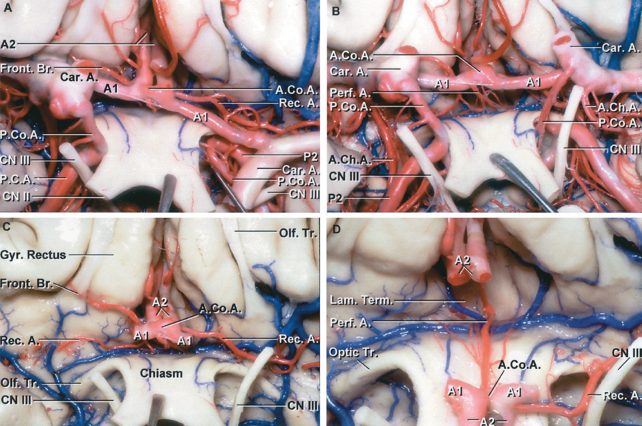 FIGURE 2.16 A-D. Perforating branches of the anterior part of the circle of Willis. A, the A1, A2, and AComA are exposed above the optic chiasm. The left recurrent arteries arise from the ACA at the level of the AComA and travel laterally above the carotid bifurcation and below the anterior perforated substance. A small frontal branch arises at the same level on the right side. The stump of the right carotid artery has been folded upward and the left downward. B, the chiasm has been reflected downward and the ACA gently elevated to expose the perforating branches that arise from the AComA and pass backward to enter the diencephalon through the region of the lamina terminalis. The AChAs pass around the medial aspect of the uncus. C, the A1s have been removed to expose the recurrent arteries passing laterally below the anterior perorated substance. The left recurrent artery is larger than the right. D, the anterior communicating complex has been folded downward to expose the perforating branches that pass upward and enter the brain through the region of the lamina terminalis.