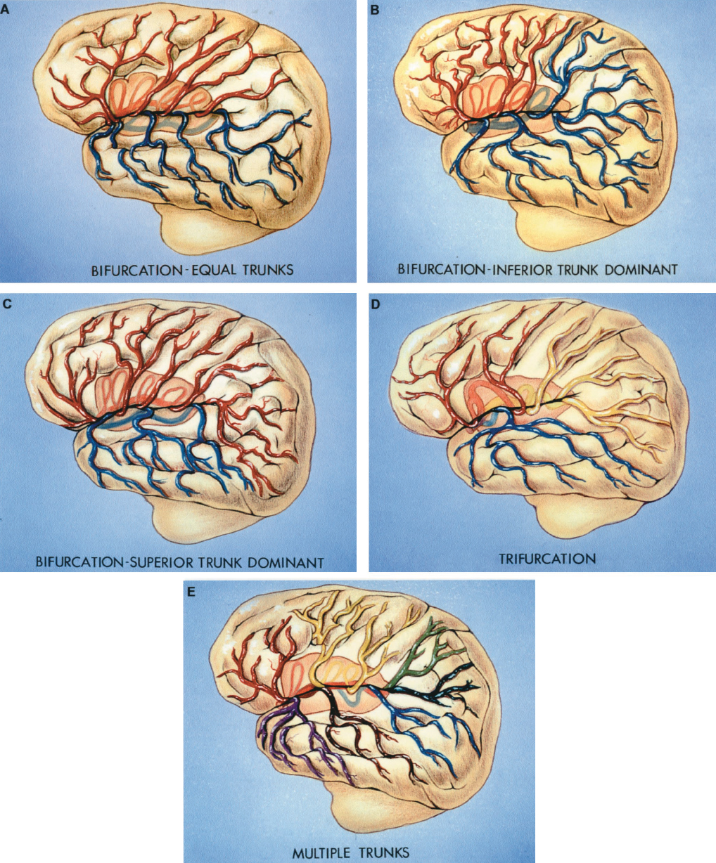 FIGURE 2.18. Branching patterns of the middle cerebral artery. The main trunk divides in a bifurcation in 78% of hemispheres and in a trifurcation in 12%. In the remaining 10%, the main trunk divides into multiple (four or more) branches. A, bifurcation: equal trunk pattern (18% of hemispheres). The main trunk divides into superior (red) and inferior (blue) trunks that are of approximately the same diameter and supply cortical areas of similar size. The superior trunk supplies the frontal and parietal areas and the inferior trunk supplies the temporal and temporo-occipital areas. B, bifurcation: inferior trunk dominant (32% of hemispheres). The inferior trunk (blue) has a larger diameter and area of supply than the superior trunk (red). The inferior trunk supplies the temporal, occipital, and parietal areas, and the superior trunk supplies the frontal areas. C, bifurcation: superior trunk dominant (28% of hemispheres). The superior trunk (red) has the largest diameter and area of supply; it supplies the frontal, parietal, temporo-occipital, and posterior temporal areas, and the smaller inferior trunk (blue) supplies the temporopolar through the middle temporal areas. D, trifurcation pattern (12% of hemispheres). The main trunk of the middle cerebral artery divides into three trunks. The superior trunk (red) supplies the frontal areas, the middle trunk (yellow) supplies the areas around the posterior end of the sylvian fissure, and the inferior trunk (blue) supplies the temporal areas. E, multiple trunks (10% of hemispheres). The main trunk gives rise to multiple smaller trunks. Two trunks supply the frontal areas (red and yellow), two supply the parietal areas (light green and dark green), and three supply the temporal and occipital areas (purple, brown, and blue). (From, Gibo H, Carver CC, Rhoton AL Jr, Lenkey C, Mitchell RJ: Microsurgical anatomy of the middle cerebral artery. J Neurosurg 54:151–169, 1981 [14].)