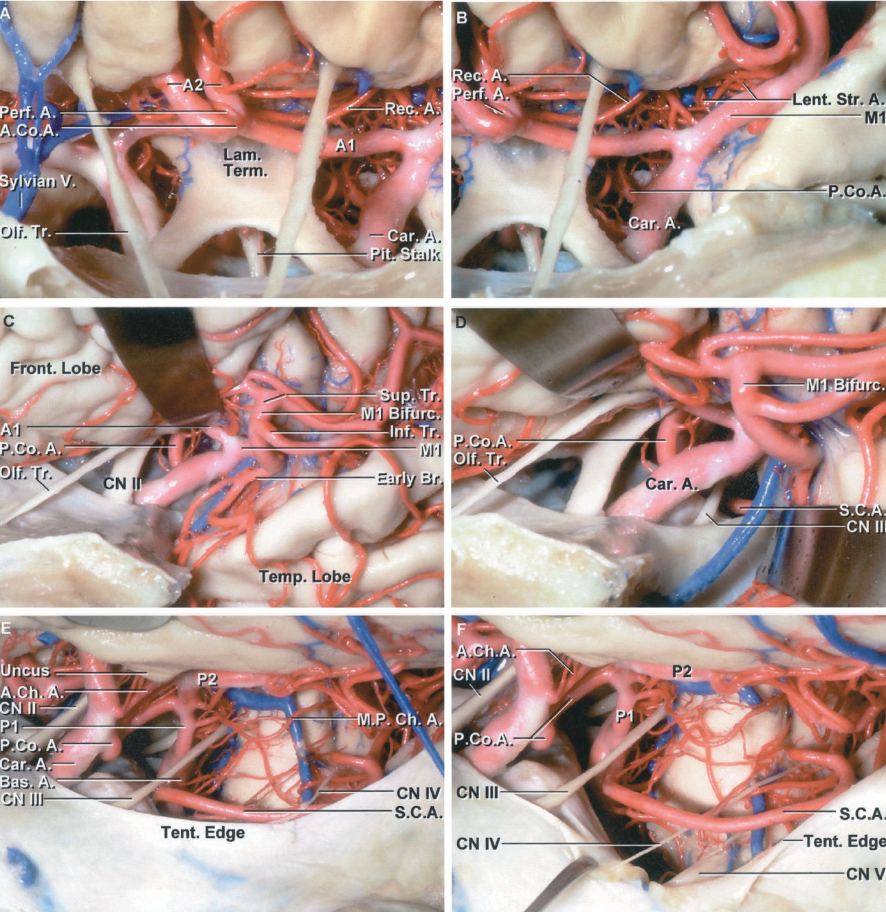 Figure 2.1 A-F. Arteries in the basal cisterns. A, anterior view. A1s of nearly equal size cross the front of the lamina terminalis. The right A2 enters the interhemispheric fissure in front of the left A2. The left recurrent artery arises near the level of the anterior communicating artery (AComA) and passes laterally below the anterior perforated substance. A perforating artery arises from the AComA. B, the view has shifted laterally above the carotid bifurcation. The recurrent artery passes laterally above the A1 and intermingles with the lenticulostriate branches of the M1. The posterior communicating artery (PComA) is directed medially and is seen through the opticocarotid triangle located between the carotid artery, optic nerve, and the A1. C, anterolateral view. The PComA is seen through the opticocarotid triangle. The M1 bifurcates into superior and inferior trunks at the limen insula. D, the basal cisterns have been opened and the temporal pole retracted to expose the oculomotor nerve. The PComA is directed backward above and medial to the oculomotor nerve. The superior cerebellar artery courses below the oculomotor nerve. E, the temporal lobe has been elevated. The anterior choroidal artery (AChA) ascends on the medial side of the uncus. The PComA and the P1 join to form the P2, which continues backward on the medial side of the posterior part of the uncus. A medial posterior choroidal artery (MPChA) passes backward around the brainstem. The superior cerebellar artery passes below the oculomotor and trochlear nerves. The branches forming the P3 course through the quadrigeminal cistern. The P2 courses through the ambient and crural cisterns. A MPChA encircles the brainstem. F, the tentorium has been divided to expose the upper part of the basilar artery. The trigeminal nerve is exposed in the lateral margin of the tentorial opening. The posterior cerebral artery (PCA) courses above and the superior cerebellar artery courses below the oculomotor nerve.