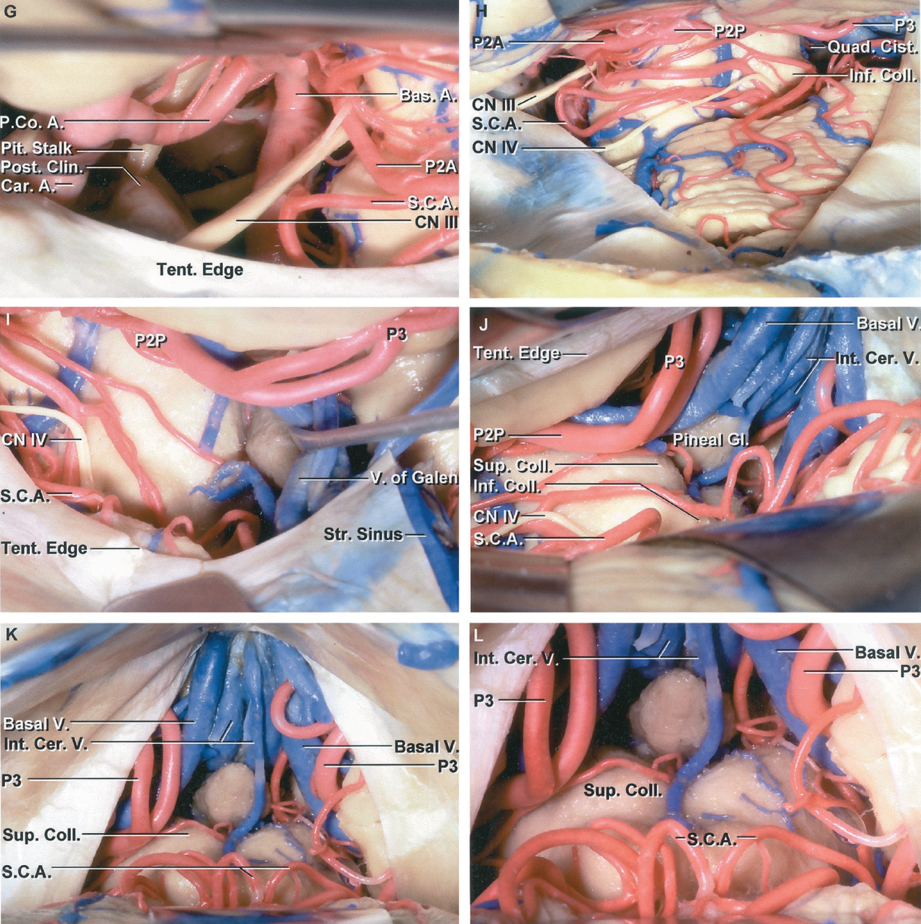 Figure 2.1 G-L. G, subtemporal exposure in another specimen. The PComA is larger than shown in D and E. The oculomotor nerve passes forward between the PCA and the superior cerebellar arteries. H, the exposure has been extended further posteriorly along the side of the brainstem to the quadrigeminal cistern. The tentorium has been divided to expose the upper part of the cerebellum. The PCA and superior cerebellar artery encircle the brainstem to reach the quadrigeminal cistern. The P2 is divided into a P2A that courses in the crural cistern between the uncus and cerebral peduncle, and a P2P that courses in the ambient cisterns between the parahippocampal gyrus on the midbrain. The P3 courses in the quadrigeminal cistern. The trochlear nerve arises below the inferior colliculus and crosses above the branches of the superior cerebellar artery. I, the exposure has been extended further posteriorly, above the tentorium to the left half of the quadrigeminal cistern. The tributaries of the vein of Galen have been retracted to expose the pineal. The PCA courses above the tentorium and the superior cerebellar artery below. The trochlear nerve arises below the inferior colliculus and passes around the brainstem. J, the exposure has been directed below the tentorium. The internal cerebral veins exit the roof of the third ventricle and the basal veins exit the basal cisterns to join and form the vein of Galen. The P3 courses through the quadrigeminal cistern. K, midline infratentorial exposure. The pineal is exposed between the posterior cerebral arteries and basal veins and below the internal cerebral veins. The exposure into the fissure between the cerebellum and midbrain is not as great as can be achieved when the exposure is directed off to the side of the vermian apex in a paramedian location as shown in J. L, enlarged view of the midline infratentorial exposure. A., artery, arteries; A.Co.A., anterior communicating artery; Bas., basilar; Bifurc., bifurcation; Br., branch