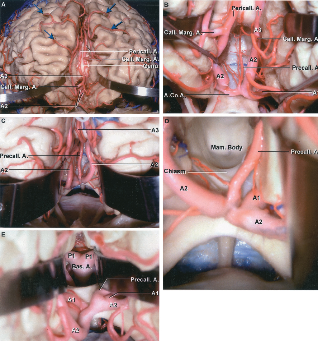 FIGURE 2.21. Anterior cerebral artery. A, the lips of the anterior part of the interhemispheric fissure have been retracted to expose the branches of the pericallosal and callosomarginal arteries coursing around the genu of the corpus callosum. The callosomarginal artery arises anterior to the genu of the corpus callosum. The cortical branches (yellow arrow) pass around the superior margin to reach the lateral cortical surface. The A2 courses below the corpus callosum, the A3 courses around the callosal genu, and the A4 and A5 course above the corpus callosum. B, enlarged view. A precallosal artery arises from the AComA adjacent to the left ACA and passes upward in front of the lamina terminalis and rostrum of the corpus callosum, sending branches to the diencephalon and corpus callosum along its course. C, another specimen. The lips of the interhemispheric fissure have been retracted to expose a large precallosal artery that ascends around the genu to reach the upper callosal surface. D, the large precallosal artery has been retracted to the left and the lamina terminalis opened to expose the mamillary bodies in the floor of the third ventricle. E, the floor of the third ventricle has been opened to expose the apex of the basilar artery and origin of the P1s in the interpeduncular cistern at the posterior margin of the circle of Willis. A., artery; A.Co.A., anterior communicating artery; Bas., basilar; Call. Marg., callosomarginal; Mam., mamillary; Pericall., pericallosal; Precall., precallosal.