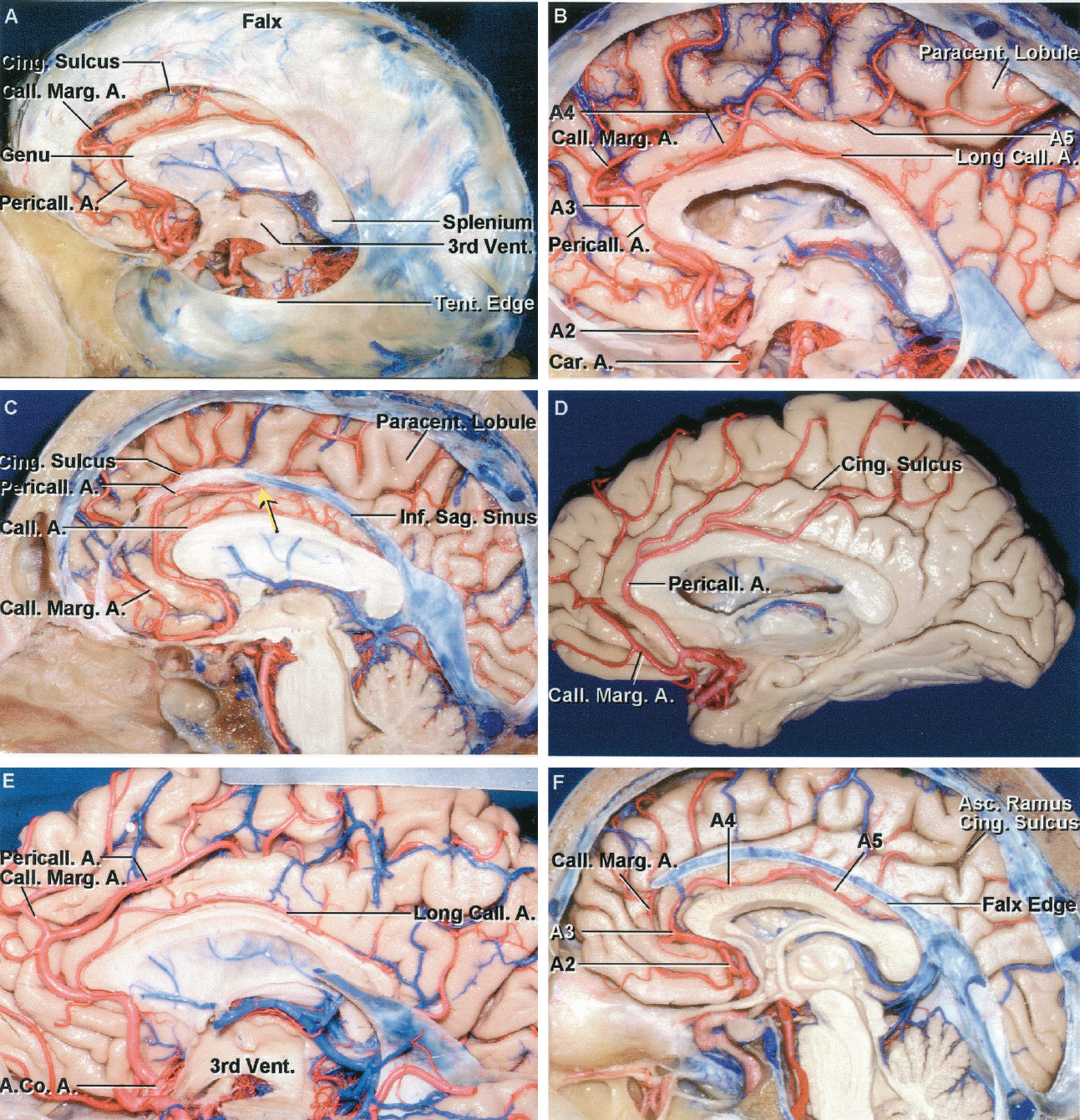 FIGURE 2.22. Variations in the origin of the callosomarginal artery from the pericallosal artery. The pericallosal artery is defined as arising at the AComA and the callosomarginal is defined as the branch arising from the pericallosal to course along the cingulate sulcus and supply two or more cortical areas. The callosomarginal artery can arise from the pericallosal artery just distal to the AComA or at any site along the course of the pericallosal artery. A and B show the most common variation in which the callosomarginal artery arises as the pericallosal artery courses around the genu of the corpus callosum. A, the callosomarginal artery arises anterior to the genu of the corpus callosum. The distal part of the ACA, the part beginning at the AComA, is divided into four segments: The A2 extends from the AComA to the lower margin of the corpus callosum; the A3 courses around the anterior part of the corpus callosum; the A4 and A5 course above the anterior and posterior half of the corpus callosum, respectively. The anterior part of the falx cerebri is more widely separated from the corpus callosum than the posterior part. The inner edge of the anterior part of the falx is widely separated from the anterior part of the corpus callosum, but the space between the falx and callosal surface narrows as it proceeds posteriorly so that the posterior falx tightly hugs the splenium. The wide opening anteriorly between the falx and the corpus callosum permits the anterior part of the hemisphere and the more forward branches of the ACA to exhibit greater shift anteriorly than posteriorly. B, the falx has been removed. The distal ACA branches extend around the margins of the hemisphere to reach the orbital surface of the frontal lobe and the anterior two-thirds of the lateral convexity. The distal part of the pericallosal artery ascends to course along the cingulate sulcus to reach the paracentral lobule. C, the callosomarginal artery arises just distal to the AComA in the cis