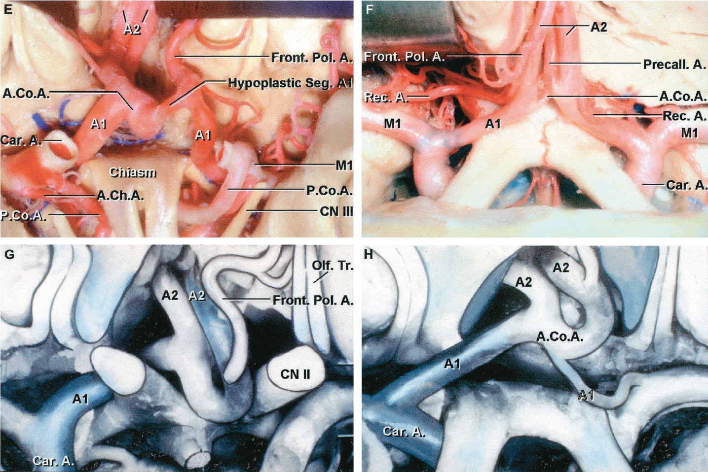 FIGURE 2.23 E-H.E, the left A1 gives rise to a frontopolar branch. The segment of the A1 between the origin of the frontopolar branch and the AComA is hypoplastic. The right A1 is dominant and provides the majority of the flow to both A2s. F, anterior view. The left A1 is larger than the right. The AComA is short and small. A precallosal artery arises from the left A1-A2 junction near the AComA. The right recurrent artery arises from the frontopolar artery and passes laterally above the carotid bifurcation. The left recurrent artery arises at the level of the AComA. G and H, most common anatomic variant associated with an AComA aneurysm. G, the right A1 is dominant and gives rise to both A2s. The left A1 is hidden behind the optic nerve. The left A2 loops downward between the optic nerves. H, the anterior communicating complex has been elevated to show the hypoplastic left A1. A., artery; A.Ch.A., anterior choroidal artery; Bas., basilar; Car., carotid; CN, cranial nerve; Front. Pol., frontopolar; Lam., lamina; Olf., olfactory; P.Co.A., posterior communicating artery; Perf., perforating; Precall., precallosal; Rec., recurrent; Seg., segment; Term., terminalis; Tr., tract.