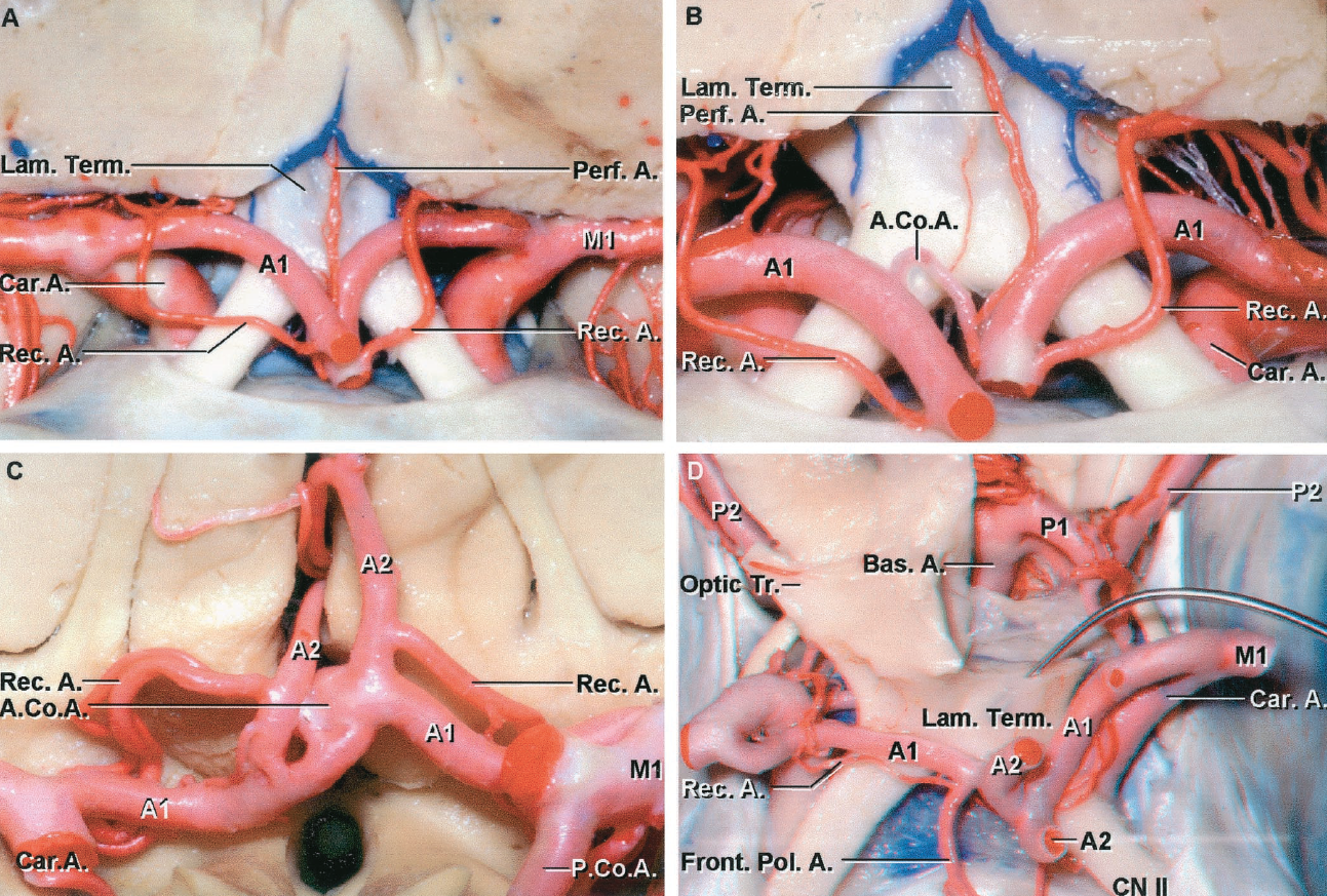 FIGURE 2.23 A-D. Variations in the anterior part of the circle of Willis. A, anterior view of A1s of nearly equal size. The AComA is hypoplastic and is hidden between the ACAs. Recurrent arteries arise from the A2s at the same level on both sides. B, the A2s have been separated to expose the AComA, which is the site of a perforating branch that enters the brain through the region of the lamina terminalis. C, the A1s are of equal size and give rise to A2s of approximately the same size. The AComA is broad and somewhat dimpled and is expanding behind the right A2 in what may be the beginning of an aneurysm. Both recurrent arteries arise from the proximal A2. D, the left A1 is larger than the right A1. The right recurrent artery arises from a frontopolar artery and passes laterally toward the carotid bifurcation. The AComA is of approximately the same diameter as the left A1 and is the predominant source of flow to both A2s. The floor of the third ventricle has been opened to expose the basilar apex and the P1s.