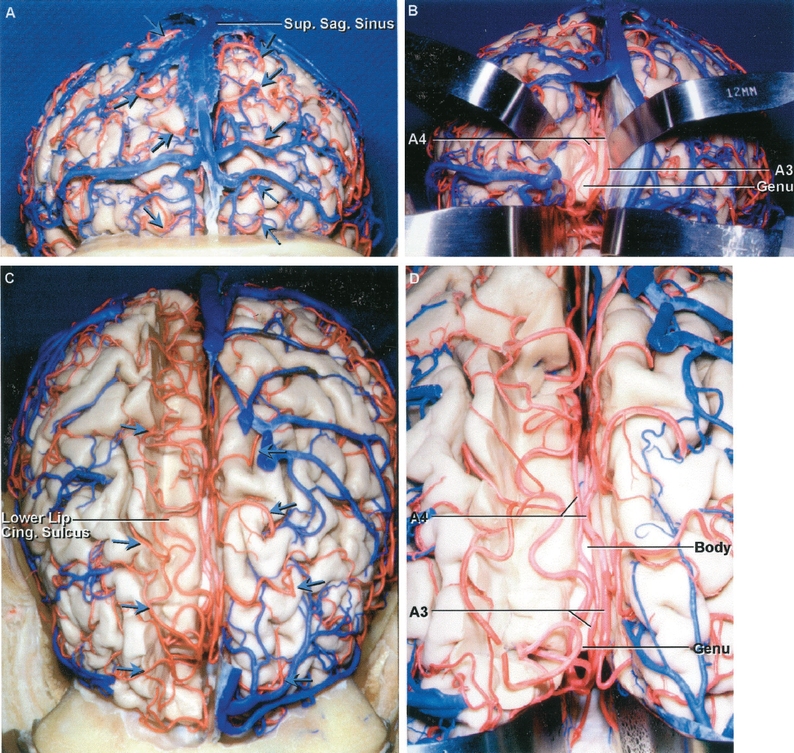FIGURE 2.25. Anterior cerebral artery. A, anterior view of the cerebral hemispheres. The branches of the ACA cross the superior and anterior margins of the hemisphere to supply the adjacent part of the lateral convexity (arrows). These ACA branches exiting the interhemispheric fissure course deep to the venous lacunae and the cortical veins entering the superior sagittal sinus. B, the falx and right frontal lobe have been retracted to expose the A3s passing around the genu of the corpus callosum deep in the interhemispheric fissure. The A4s course above the anterior part of the callosal body. C, the cortical strip above the right cingulate sulcus has been removed, while preserving the ACA branches looping deep within the sulci on the medial surface of the hemisphere. These branches often course within a sulci along the superior margin to reach the lateral surface. D, enlarged view of the branches of the ACA coursing deep within the cingulate sulcus. Some branches course deep within sulci along the superior margin of the hemisphere rather than looping over the upper edge of the superior margin to reach the lateral surface. Cing., cingulate; Sag., sagittal; Sup., superior.
