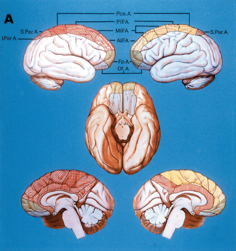 FIGURE 2.27. A, area of supply of the distal anterior cerebral artery and its individual branches. The areas shown in blue, green, and red are supplied by branches arising directly from the pericallosal artery. Areas in yellow arise from branches of the callosomarginal artery. The orbitofrontal and frontopolar arteries are shown in green and blue, respectively. The anterior internal frontal artery shows as vertical broken lines, the middle internal frontal artery as oblique lines passing upward to right; the posterior internal frontal artery as oblique lines passing downward to right; the paracentral artery as cross-hatched; the superior parietal artery as horizontal lines; the inferior parietal artery as horizontal broken lines; and the pericallosal area supplied by short or terminal branches of the pericallosal artery as vertical lines. A, right cerebral hemisphere (upper and lower left, and left half of basal view). All cortical branches of the ACA arise directly from pericallosal artery and are shown in blue, green, and red. The callosomarginal artery is absent in 18% of hemispheres. Left hemisphere (upper and lower right, and right half of basal view) shows four of the major cortical branches arising from the callosomarginal artery (yellow area). The anterior internal frontal through the paracentral arteries arise from the callosomarginal artery. The maximum number of cortical branches that arise from the callosomarginal artery is five. The terminal branch of the pericallosal artery passes around the splenium of the corpus callosum toward the foramen of Monro. The inferior parietal artery is absent.