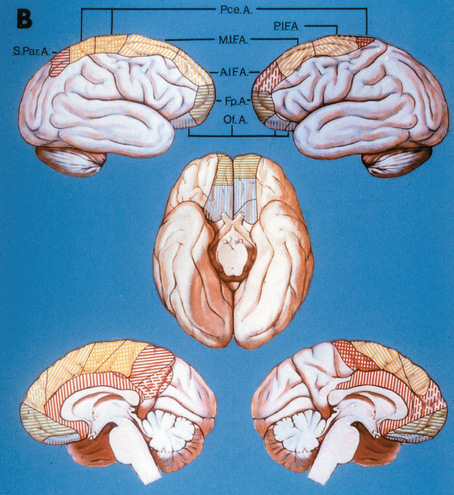 FIGURE 2.27.B, the right hemisphere (upper and lower left, and left half of basal view) shows an unusually large area of supply of the ACA, extending beyond the parieto-occipital fissure to the cuneus. The posterior internal frontal artery is absent. The callosomarginal artery gives rise to the anterior and middle posterior frontal and the paracentral arteries (yellow area). The black line subdivides the cross-hatched area of the paracentral artery to show the two separate branches arising from the pericallosal artery to supply the area of the paracentral artery. The left hemisphere (upper and lower right, and right half of basal view) shows an unusually small area of supply of the ACA. The branches reach only the paracentral area. The callosomarginal artery gives origin to two cortical branches: the middle and posterior internal frontal arteries (yellow area). The superior and inferior parietal arteries are absent. The black line divides the orbitofrontal area (blue lines) to show that it was supplied by two separate branches of the pericallosal artery.