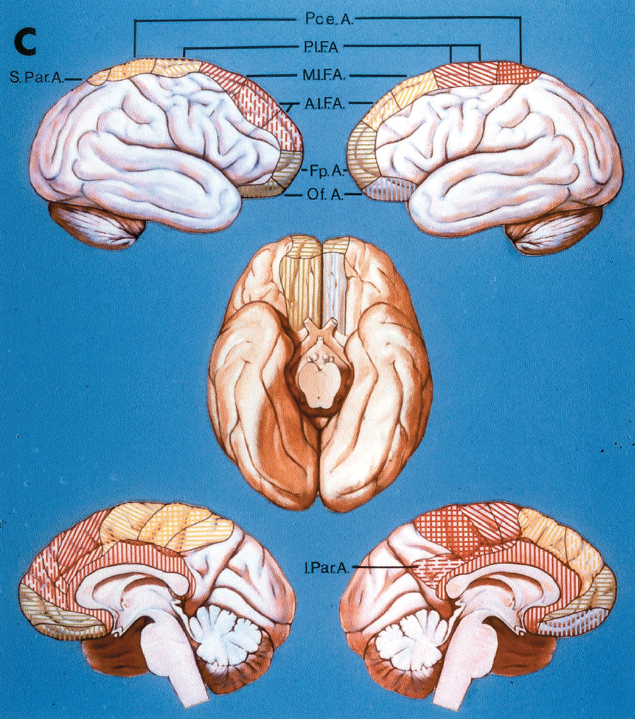FIGURE 2.27.C, the right hemisphere (upper and lower left, and left half of basal view) shows the orbitofrontal and frontopolar arteries arising from a common trunk (both shown in green), a relatively posterior area of supply of three branches arising from the callosomarginal artery (yellow area), and absence of the inferior parietal artery. The left hemisphere (upper and lower right, and right half of basal view) illustrates two cortical branches arising from the callosomarginal area (yellow) and absence of the superior and presence of the inferior parietal artery. The black line subdivides the area of posterior internal frontal artery to show that two separate branches arise from the pericallosal artery to supply this area. A., artery; A.I.F.A., anterior internal frontal artery; Fp., frontopolar; I., inferior; M.I.F.A., middle internal frontal artery; Of., orbitofrontal; Par., parietal; Pce., paracentral; P.I.F.A., posterior internal frontal artery; S., superior. (From, Perlmutter D, Rhoton AL Jr: Microsurgical anatomy of the distal anterior cerebral artery. J Neurosurg 49:204–228, 1978 [27].)