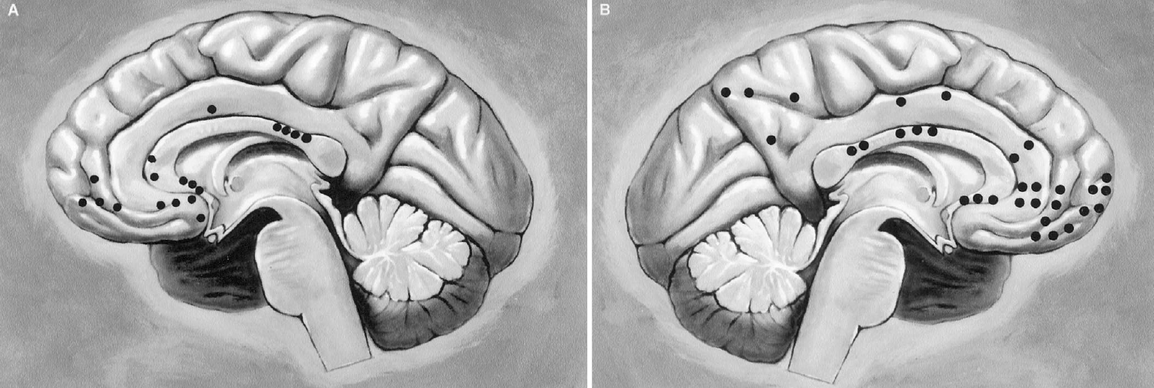 FIGURE 2.28. Medial surface of cerebral hemispheres. A, right hemisphere; B, left hemisphere. Black dots indicate points where a branch from the opposite anterior cerebral artery arrives to supply the hemisphere shown. Based on the right and left hemispheres from 25 brains (from, Perlmutter D, Rhoton AL Jr: Microsurgical anatomy of the distal anterior cerebral artery. J Neurosurg 49:204–228, 1978 [27]).