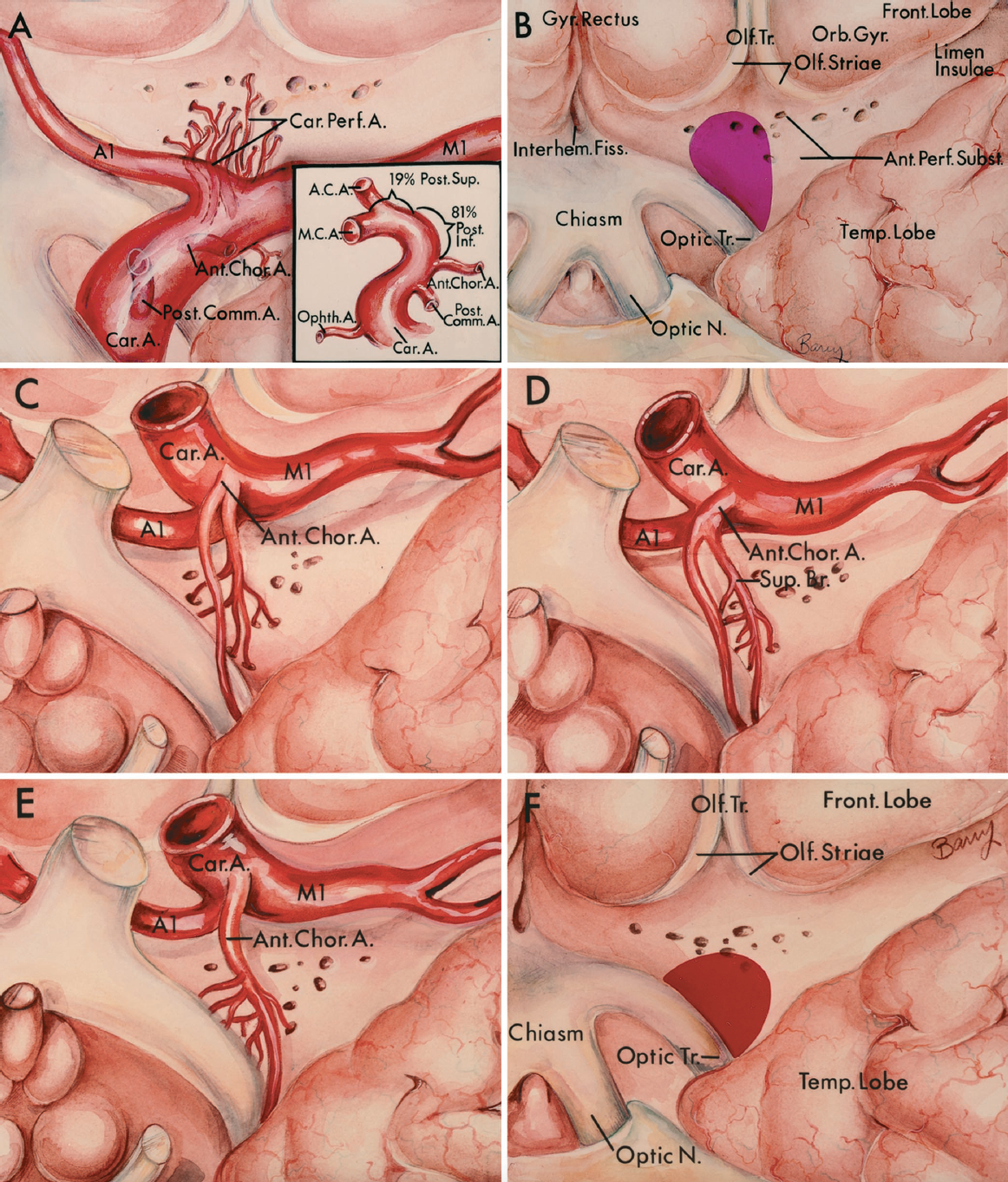 FIGURE 2.30A–F. A, arteries entering the anterior perforated substance. The internal carotid, anterior and middle cerebral, anterior choroidal, and recurrent arteries send branches to the anterior perforated substance. The carotid branches arise distal to the origin of the anterior choroidal artery, well above the origin of the ophthalmic and posterior communicating arteries. The middle cerebral branches arise from the M1 and M2 segments. The anterior cerebral branches, including the recurrent arteries, arise from the A1 and A2 segments. The anterior perforated substance extends medially above the optic chiasm to the interhemispheric fissure, laterally to the limen insulae, anteriorly to the olfactory striae, and posteriorly to the optic tract and temporal lobe. The olfactory tract courses along the inferior surface of the frontal lobe at the junction of the gyrus rectus and the orbital gyri. A and B, internal carotid artery. A, the branches from the internal carotid artery to the anterior perforated substance arise from the posterior wall above the anterior choroidal artery, and course upward behind the carotid bifurcation. Inset: lateral view of the carotid artery. Eighty-one percent of the branches to the anterior perforated substance arise from the posterior wall below the bifurcation and 18% arise from the posterosuperior surface of the wall, at or near the level of the bifurcation. B, internal carotid zone and territory in the anterior perforated substance. Most of the branches of the internal carotid artery enter the posterior and middle zones of the medial territory of the anterior perforated substance. C–F, anterior choroidal artery. Inferior views showing three patterns of origin (C–E). C, a branch to the anterior perforated substance arises in common with the origin of the anterior choroidal artery. D, the superior branch of the anterior choroidal artery gives rise to branches to the anterior perforated substance. E, the main trunk of the anterior choroid