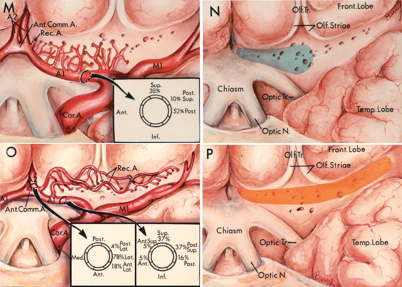 FIGURE 2.30 M-P.M and N, perforating branches of the A1 segment of the anterior cerebral artery. M, the A1 branches arise below the medial part of the anterior perforated substance and pass superior. The lateral half of the A1 segment is a richer site of perforating branches than the medial half. Inset: the branches arise from the posterior, superior, or posterosuperior surface of the A1 segment. N, the A1 branches enter the narrow band of anterior perforated substance extending above the optic chiasm. They enter predominantly the posterior and middle zone of the medial territory of the anterior perforated substance. O and P, recurrent artery. O, as many as four recurrent arteries may arise from the anterior cerebral artery, either proximal to or near the level of the AComA. They pass laterally above the carotid bifurcation and give branches to the full mediolateral extent of the anterior perforated substance. They may wander forward on the posterior part of the orbital surface of the frontal lobe. Inset (lower right): Site of origin of the recurrent arteries. Left inset: Recurrent artery origins near the junction of the A1 and A2 segments. The cross section of the artery at this level is oriented in a transverse plane. These branches arise predominantly from the lateral side of the vessel. Right inset: Site of origin of recurrent arteries arising from the A1 segments. The cross section of the artery at this level has an orientation in the sagittal plane. The branches arise predominantly from the superior or posterosuperior surface. P, the branches of the recurrent artery enter predominantly the anterior half of the anterior perforated substance along its full mediolateral extent, from the interhemispheric fissure to the limen insulae. A., arteries, artery; A.C.A., anterior cerebral artery; Ant., anterior; Car., carotid; Chor., choroidal; Comm., communicating; Fiss., fissure; Front., frontal; Gyr., gyrus; Inf., inferior; Int., intermediate; Interhem., interhemispher
