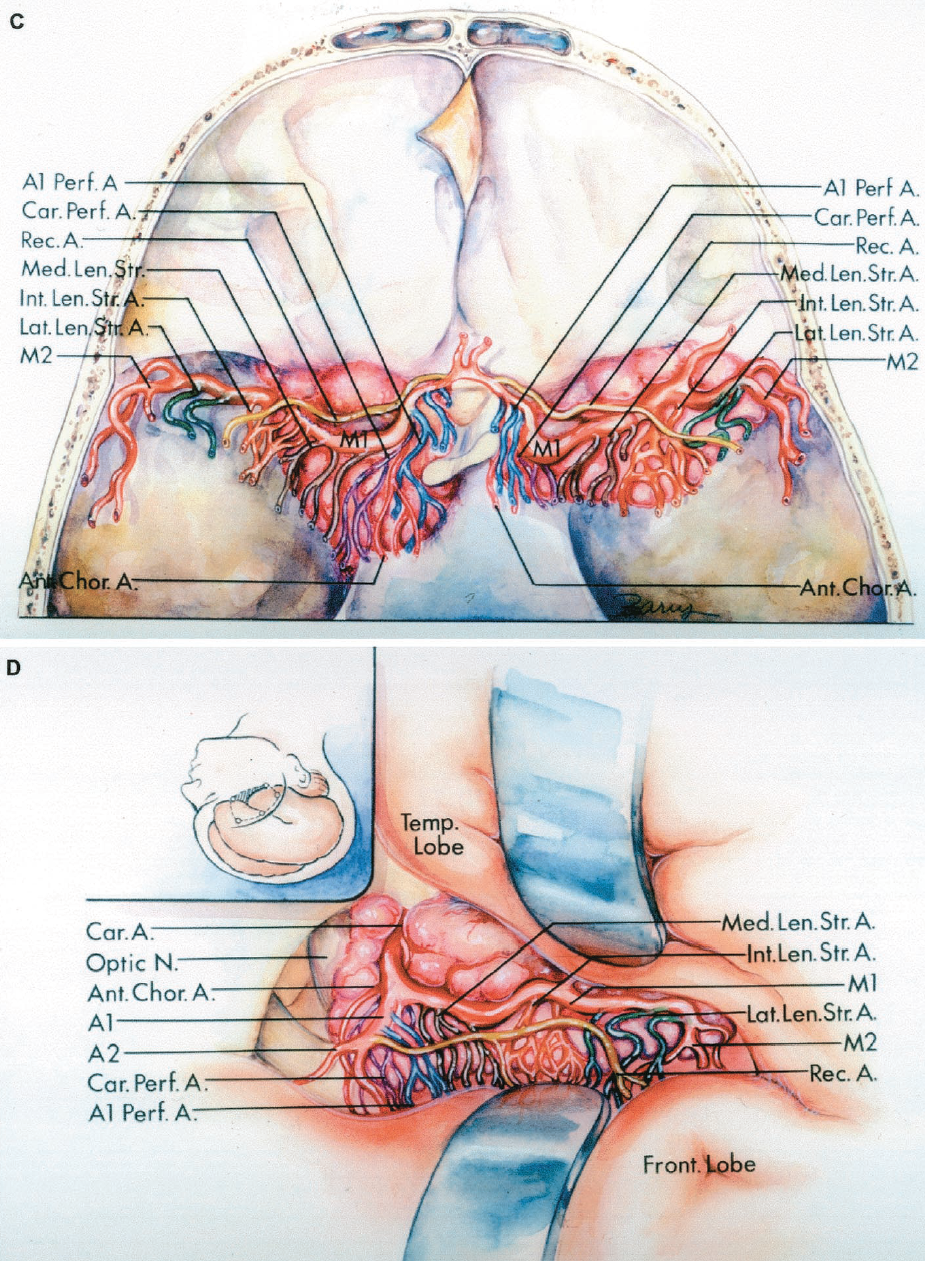 FIGURE 2.32 C–D, relationship of the anterior perforating arteries to tumors along the sphenoid ridge. C, superior view. The anterior perforating arteries are stretched across the upper surface of a sphenoid ridge meningioma. D, pterional exposure. The incision is shown in the inset. The frontal and temporal lobes have been retracted to expose the carotid artery, which is encased by tumor. The anterior perforating arteries are stretched across the upper surface of the tumor. It is best to debulk a tumor of this type before separating the tumor capsule from the perforating arteries by using careful    microtechnique. A., arteries, artery; Ant., anterior; Cap., capsule; Car., carotid; Chor., choroidal; Fiss., fissure; Front., frontal; Gyr., gyrus; Int., intermediate, internal; Interhem., interhemispheric; Lat., lateral; Lent. Str., lenticulostriate; Med., medial; N., nerve; Nucl., nucleus; Olf., olfactory; Orb., orbital; Pall., pallidus; Perf., perforating; Post., posterior; Rec., recurrent; Temp., temporal; Tr., tract. (From, Rosner SS, Rhoton AL Jr, Ono M, Barry M: Microsurgical anatomy of the anteriorperforating arteries. J Neurosurg 61:468–485, 1984 [36].)
