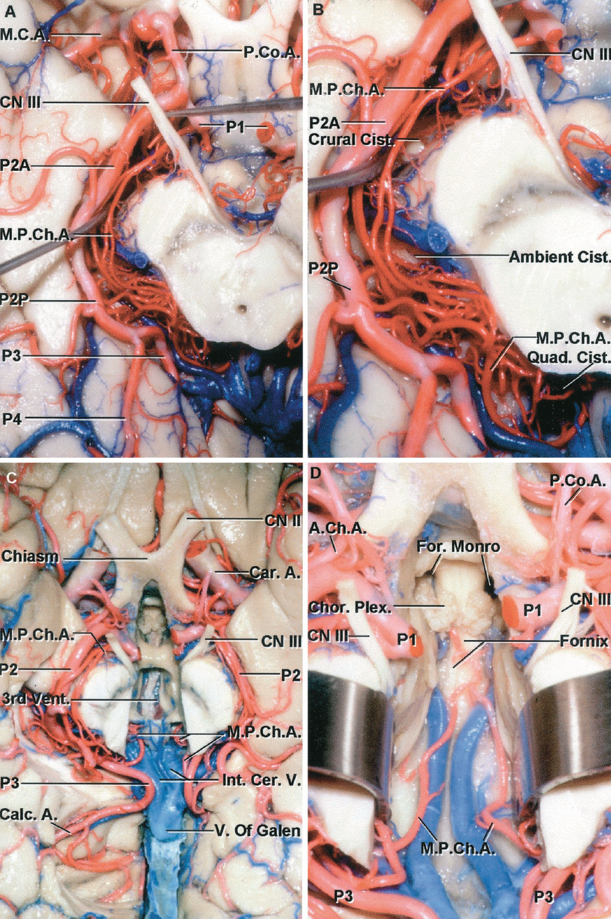 FIGURE 2.33A-D. Posterior choroidal arteries. A, inferior view of the posterior cerebral artery. The medial posterior choroidal artery arises from the P1 and encircles the brainstem on the medial side of the P2 and P3, giving off small branches to the brainstem along its course. The P3 is formed by the branches in the quadrigeminal cistern. B, enlarged view. The medial posterior choroidal artery encircles the brainstem in the crural, ambient, and quadrigeminal cisterns and turns forward beside the pineal in the quadrigeminal cistern to reach the roof of the third ventricle. C, inferior view of the posterior cerebral arteries in another specimen, with the floor of the third ventricle removed. The medial posterior arteries encircle the midbrain and turn forward in the quadrigeminal cistern to reach the roof of the third ventricle. Some of the medial part of the right parahippocampal gyrus has been removed to expose the branches arising from the P2. D, enlarged view. The lower layer of tela in the roof of the third ventricle has been opened to expose the medial posterior choroidal arteries coursing in the velum interpositum with the branches of the internal cerebral vein. The choroid plexus in the body of the lateral ventricle is continuous at the posterior margin of the foramen of Monro with the choroid plexus in the roof of the third ventricle, which has been removed.
