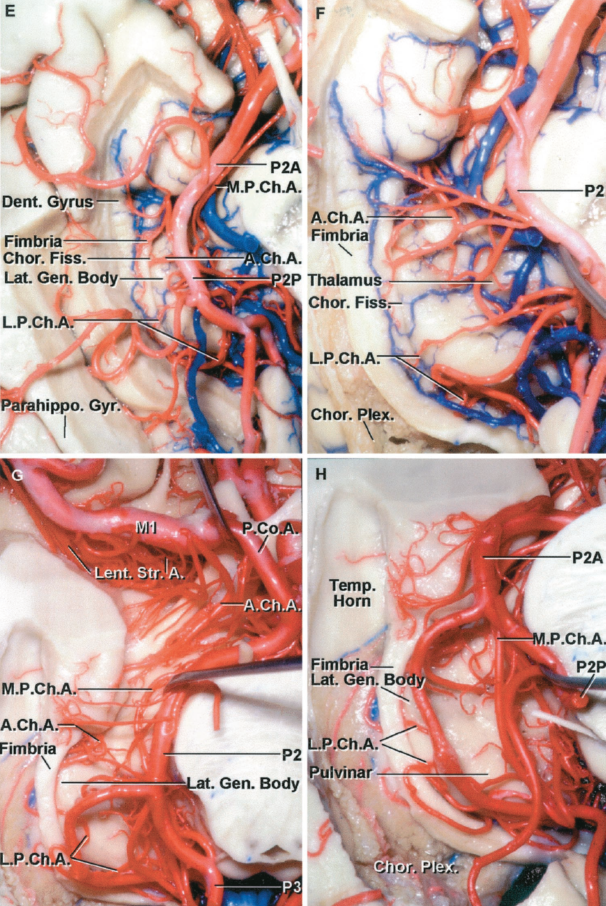 FIGURE 2.33 E-H.E, the medial part of the left parahippocampal gyrus has been removed to expose the lateral posterior choroidal arteries arising from the P2 and passing through the choroidal fissure located between the fimbria and thalamus to reach the choroid plexus in the temporal horn. Perforating branches like the thalamogeniculate arteries also arise from the P2 and ascend to penetrate the lower surface of the thalamus in the region of the geniculate bodies. F, enlarged view with the lower part of the hippocampal gyrus removed while preserving the fimbria. The P2 has been retracted medially to expose the lateral posterior choroidal arteries passing through the choroidal fissure located between the fimbria and thalamus to enter the choroid plexus in the temporal horn. The anterior choroidal artery is also seen passing through the fissure. G, another specimen. The M1 and P1 and P2 give rise to a series of perforating branches that enter the basal surface of the brain. The P2 has been retracted to expose the lateral posterior choroidal branches passing laterally through the choroidal fissure to reach the choroid plexus in the temporal horn and atrium. The parahippocampal gyrus has been removed. The fimbria and thalamus border the choroidal fissure. The lateral geniculate body protrudes from the lower margin of the thalamus. H, enlarged view. The lateral posterior choroidal artery passes laterally through the choroidal fissure to reach the choroid plexus. The medial posterior choroidal encircles the brainstem. A., arteries, artery; A.Ch.A., anterior choroidal artery; Calc., calcarine; Car., carotid; Cer., cerebral; Chor., choroid, choroidal; Cist., cistern; CN, cranial nerve; Dent., dentate; Fiss., fissure; For., foramen; Gen., geniculate; Gyr., gyrus; Int., internal; Lat., lateral; Lent. Str., lenticulostriate; L.P.Ch.A., lateral posterior choroidal artery; M.C.A., middle cerebral artery; M.P.Ch.A., medial posterior choroidal artery; Parahippo., parahippocampal; P