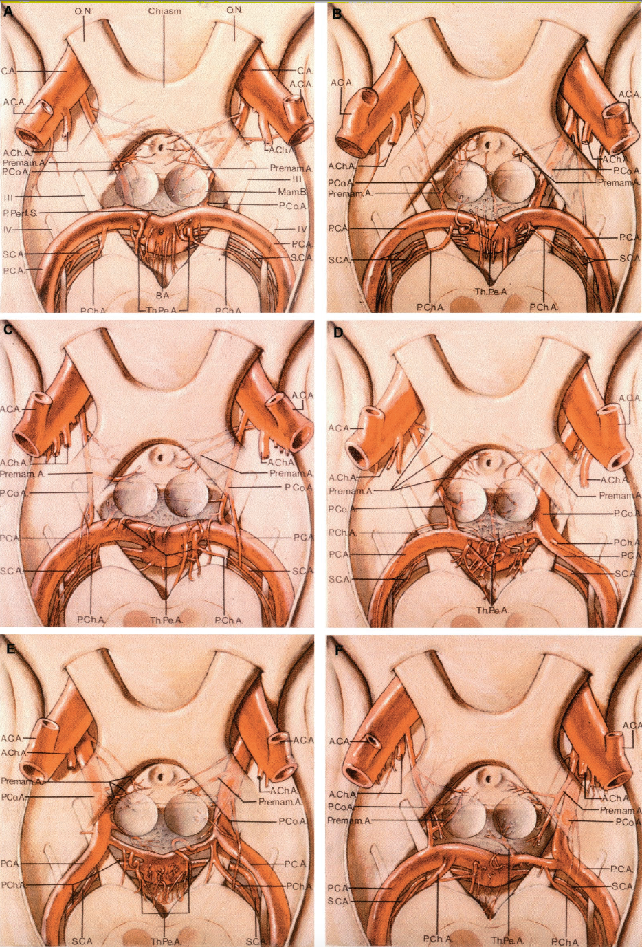 FIGURE 2.34. Superior view of the basilar, superior cerebellar, P1, and distal segments of posterior cerebral, posterior communicating, internal carotid, and proximal anterior choroidal arteries. The arterial branches below the posterior perforating substance, mamillary bodies, optic tracts, chiasm, and nerves are shown in half tone. The third and fourth nerves course between the superior cerebellar and posterior cerebral arteries. Arterial branches to the upper pons, posterior mesencephalon, interpeduncular fossa, posterior perforating substance, mamillary bodies, tuber cinereum, optic tracts, and chiasm arise from the basilar, P1, posterior communicating, and internal carotid arteries. A, normal configuration of the posterior half of the circle of Willis; both P1s are larger than communicating arteries and the latter are not hypoplastic (diameter more than 1 mm). The right superior cerebellar artery is duplicated. The largest right P1 branch gives rise to both the thalamoperforating and the posterior choroidal arteries. Only two perforating arteries arise on the right P1. The left posterior choroidal arises on P2. Bothpremamillary arteries (largest communicating trunk to premamillary area) arise from the middle third of the PComAs. AChAs arise as a single trunk. B, hypoplastic left communicating artery. Thalamoperforating artery arises on P1 medial to the posterior choroidal arteries on both sides. The left premamillary artery arises from the posterior and the right from the anterior portion of the PComA. The superior cerebellar arteries are duplicated on both sides. C, PComAs are hypoplastic bilaterally. The largest right P1 branch gives rise to both the thalamoperforating and the PChAs. The thalamoperforating artery arises medial to the posterior choroidal artery on the left P1. The premamillary artery arises from the anterior third of the right PComA and from the middle third on the left. The left anterior choroidal arises from the carotid as two trunks. D, fet