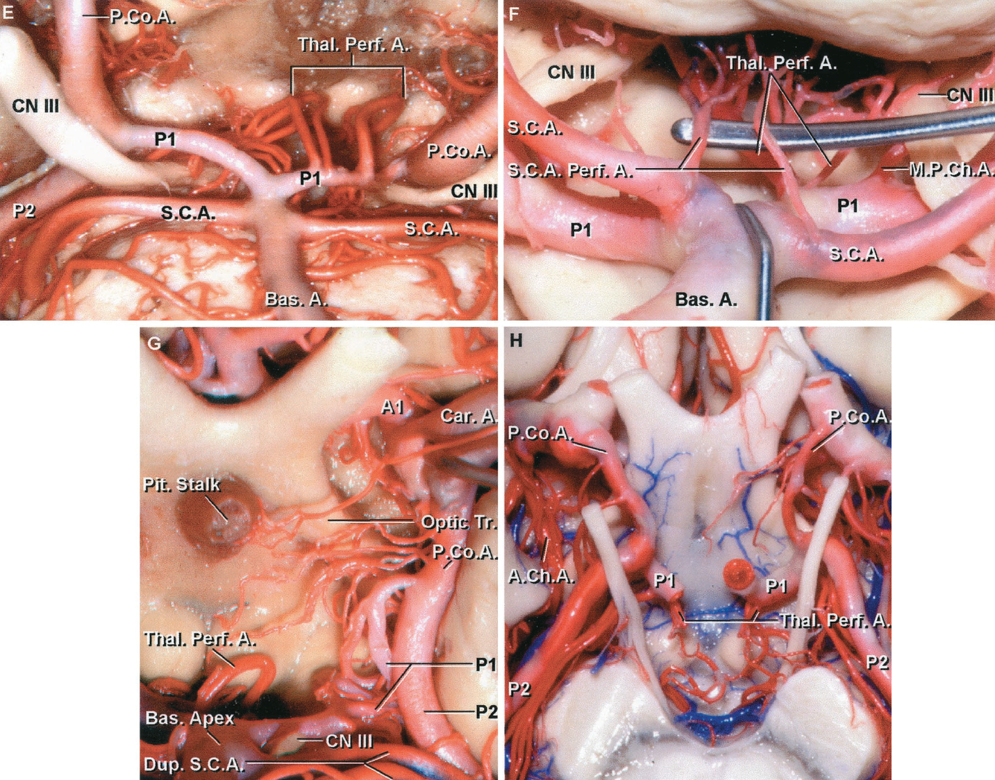 FIGURE 2.35 E-H. E, both P1s are smaller than the PComAs, but both P1s give rise to thalamoperforating arteries. The smaller, or left, P1 gives rise to more and larger perforating arteries than the larger, right, P1. F, the dissector holds up two perforating branches that arise from the origin of the superior cerebellar artery and enter the brain through the same area as the thalamoperforating arteries. G, the left PCA has a fetal origin of the PComA. A series of perforating arteries arises from the PComA and enters the diencephalon medial to the optic tract in the region of the mamillary bodies and floor of the third ventricle. The P1 pursues a tortuous course to its junction with the P2.H, inferior view. The lateral parts of the P1s give rise to thalamoperforating arteries. Perforating branches also arise from the PComA. A., artery; A.Ch.A., anterior choroidal artery; Bas., basilar; Car., carotid; CN, cranial nerve; Dup., duplicate; M.P.Ch.A., medial posterior choroidal artery; P.Co.A., posterior communicating artery; Perf., perforating; Pit., pituitary; S.C.A., superior cerebellar artery; Thal. Perf., thalamoperforating; Tr., tract.