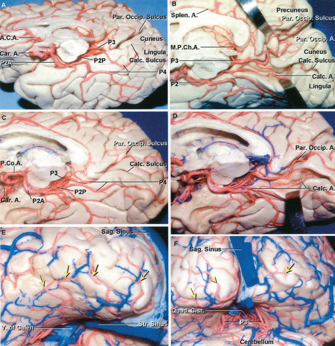 FIGURE 2.36. Posterior cerebral arteries. A, the P2 divides into a P2A, which passes through the crural cistern located between the posterior segment of the uncus and the cerebral peduncle, and a P2P, which courses through the ambient cistern, located below the lateral midbrain and parahippocampal gyrus. The P3 passes through the quadrigeminal cistern where it gives rise to the P4 formed by the cortical branches, including the parieto-occipital and calcarine arteries that course in the parieto-occipital and calcarine sulci where they are commonly hidden between the sulcal lips. B, the lips of the parieto-occipital and calcarine sulci have been retracted to expose the parieto-occipital and calcarine branches coursing along the sulci. A MPChA encircles the brainstem to reach the third ventricular roof. The cuneus forms the upper lip and the lingula forms the lower lip of the calcarine sulcus. The precuneus forms the upper lip and the cuneus forms the lower lip of the parieto-occipital sulcus. C, another hemisphere. The terminal branches of the PCA pass posteriorly within the parieto-occipital and calcarine sulci. The arrows are on branches that pass around the occipital pole to reach the adjacent lateral surface. D, the lips of the parieto-occipital and calcarine sulci have been retracted. The parieto-occipital artery courses within its sulcus. The calcarine artery courses just below the calcarine sulcus and gives rise to several small branches that course along the depths of the sulcus. E, posteroinferior view of occipital pole showing the branches (red arrow) of the PCA coursing around the occipital pole to reach the adjacent part of the lateral convexity. F, posterior view of both occipital lobes. The P4 branches course around the posterior and lower border of the occipital lobe to reach the lateral cortical surface. The P3s course on the quadrigeminal cistern. A., artery; A.C.A., anterior cerebral artery; Calc., calcarine; Car., carotid; Cist., cistern; M.P.Ch.A.,