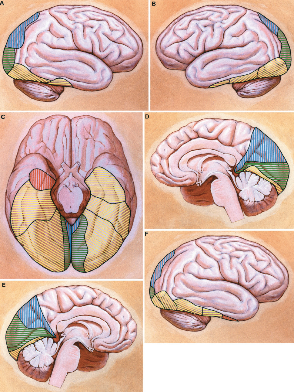 FIGURE 2.37 A-F. Lateral, medial, and basal views of the brain with color-coded sectors representing specific PCA cortical branch distribution. The color code corresponding to each PCA branch is as follows: red, hippocampal artery; yellow, temporal arteries; green, calcarine arteries; and blue, parieto-occipital artery. The temporal arteries are further subdivided: transverse yellow stripes, anterior temporal artery; vertical yellow stripes, common temporal artery; diagonal stripes, angled upward to right, anterior temporal artery; and, diagonal stripes angled down to right, posterior temporal artery. The most common pattern (44% of hemispheres) is represented on the right cerebral hemisphere (A and D, and the left half of the basal view, C). This pattern includes hippocampal, anterior temporal, and posterior temporal arteries. The cortical distribution of the parieto-occipital artery is larger than that of the calcarine artery. The second most-common pattern (20% of hemispheres) is represented on the left cerebral hemisphere (B and E, and the right half of the basal view, C). This pattern includes anterior, middle, and posterior temporal, calcarine, and parieto-occipital arteries. In this pattern the anterior temporal artery supplies the region usually supplied by the hippocampal artery.The third most-common pattern (16% of hemispheres) is shown on the right hemisphere (F and I, and left half of basal view, H). In this pattern, there is a common temporal artery that supplies the entire inferior surface of the temporal lobe. The calcarine and parieto-occipital arteries are also present.