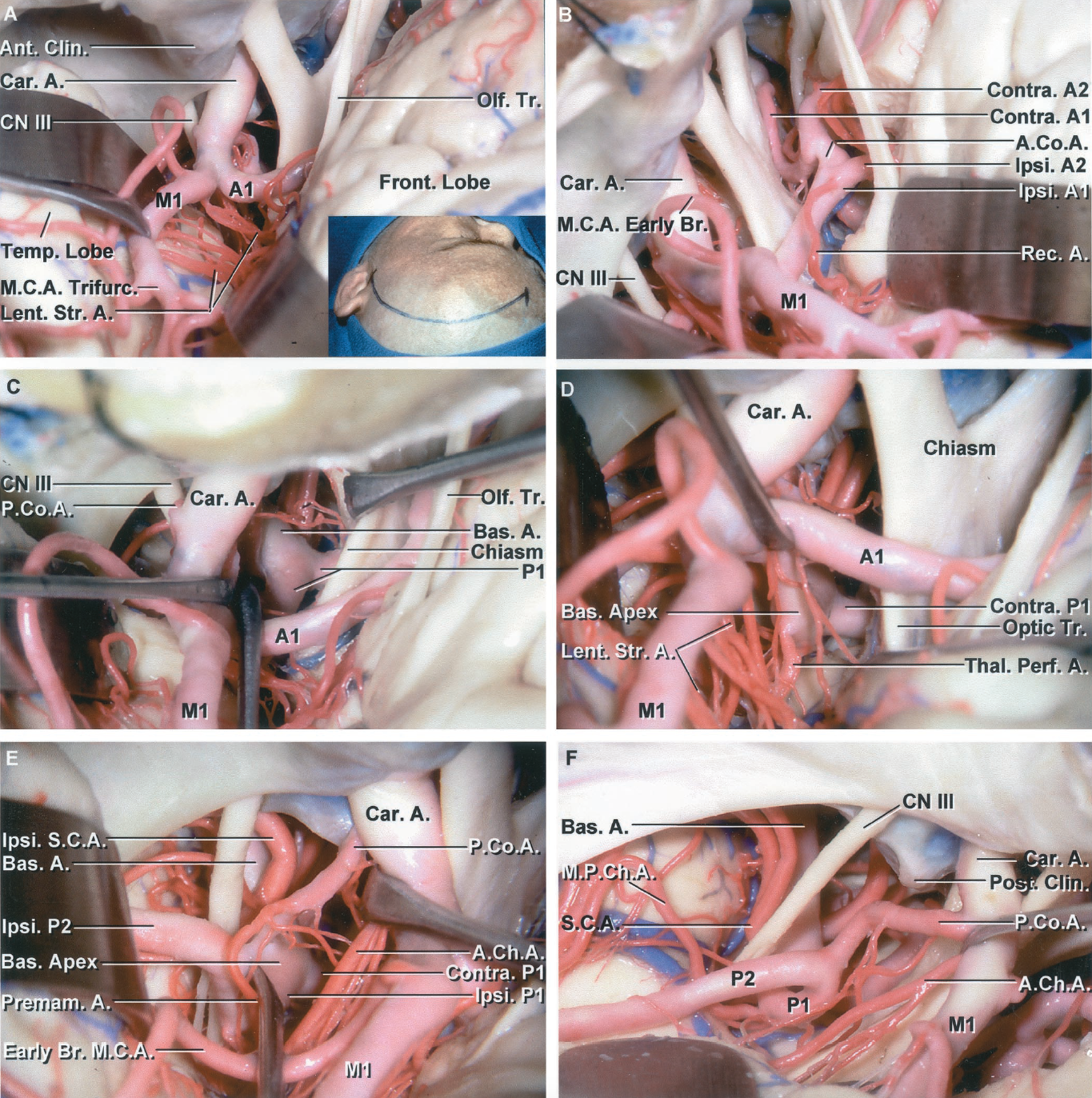 Figure 2.3 A-F. Pterional exposure of the circle of Willis. A, a left frontotemporal bone flap has been elevated and the dura opened. The left frontal and temporal lobes have been retracted to expose the carotid artery entering the dura medial to the anterior clinoid process. The carotid bifurcation has been exposed. Lenticulostriate arteries arise from the M1. The M1 splits in a trifurcation pattern. B, the exposure has been extended between the chiasm and frontal lobe to the AComA and the contralateral A1 and A2s. A recurrent artery arising near the AComA passes laterally above the carotid bifurcation. C, the basilar bifurcation has been exposed through the opticocarotid triangle located between the internal carotid artery, A1, and optic nerve. D, the carotid bifurcation has been depressed to expose the basilar apex in the interval between the carotid bifurcation and the lower margin of the optic tract. Perforating branches crossing the area can make the approach hazardous. A thalamoperforating artery arises from the ipsilateral P1. E, the temporal pole has been retracted posteriorly for a pretemporal exposure. The carotid and anterior choroidal arteries have been elevated to expose the PComA, which gives rise to a large perforating branch referred to as a premamillary artery. The M1 gives rise to an early branch proximal to the trifurcation. The P2 extends above and the superior cerebellar artery (SCA) extends below the oculomotor nerve. F, anterior subtemporal view. The temporal pole and the carotid artery have been elevated to the expose the origin of the normal-sized PComA. The AChA passes backward along the medial edge of the uncus. A large MPChA arises from the P1 and loops downward as it passes to the quadrigeminal cistern.