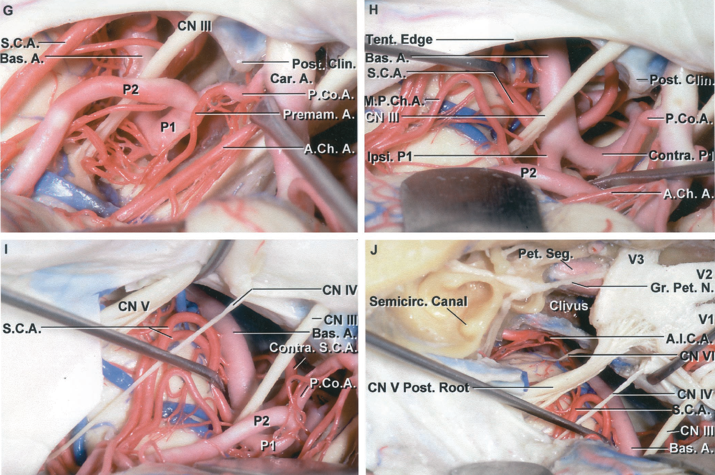 Figure 2.3 G-J. G, the AChA has been elevated to expose a large perforating branch of the PComA called a premamillary artery. H, the PComA has been elevated to provide an excellent exposure of the basilar apex and the P1s. The ipsilateral SCA arises as a duplicate artery. I, the tentorium has been divided behind where the trochlear nerve enters the edge. This increases the length of basilar artery exposed. The trunks of a duplicate superior cerebellar artery loop down toward the trigeminal nerve. J, the petrous apex has been removed to complete an anterior petrosectomy approach, which increases access to the front of the brainstem and the basilar artery. In this case, the labyrinth including the cochlea and semicircular canals, and the nerves in the internal acoustic meatus have been exposed to show the relationship of the drilling for the anterior petrosectomy in relationship to these structures. The drilling for an anterior petrosectomy is directed behind the petrous carotid artery medial to the labyrinth and proceeds medially to the inferior petrosal sinus and side of the clivus. The abducens nerve and the ICA are in the lower margin of the exposure. A., arteries, artery; A.Ch.A., anterior choroidal artery; A.Co.A., anterior communicating artery; A.I.C.A., anteroinferior cerebellar artery; Ant., anterior; Bas., basilar; Br., branch; Car., carotid; Clin., clinoid; CN, cranial nerve; Contra., contralateral; Front., frontal; Gr., greater; Ipsi., ipsilateral; Lent. Str., lenticulostriate; M.C.A., middle cerebral artery; M.P.Ch.A., medial posterior choroidal artery; N., nerve; Olf., olfactory; P.Co.A., posterior communicating artery; Pet., petrosal; Post., posterior; Premam., premamillary; Rec., recurrent; S.C.A., superior cerebellar artery; Seg., segment; Semicirc., semicircular; Temp., temporal; Tent., tentorial; Thal. Perf., thalamoperforating; Tr., tract; Trifurc., trifurcation.