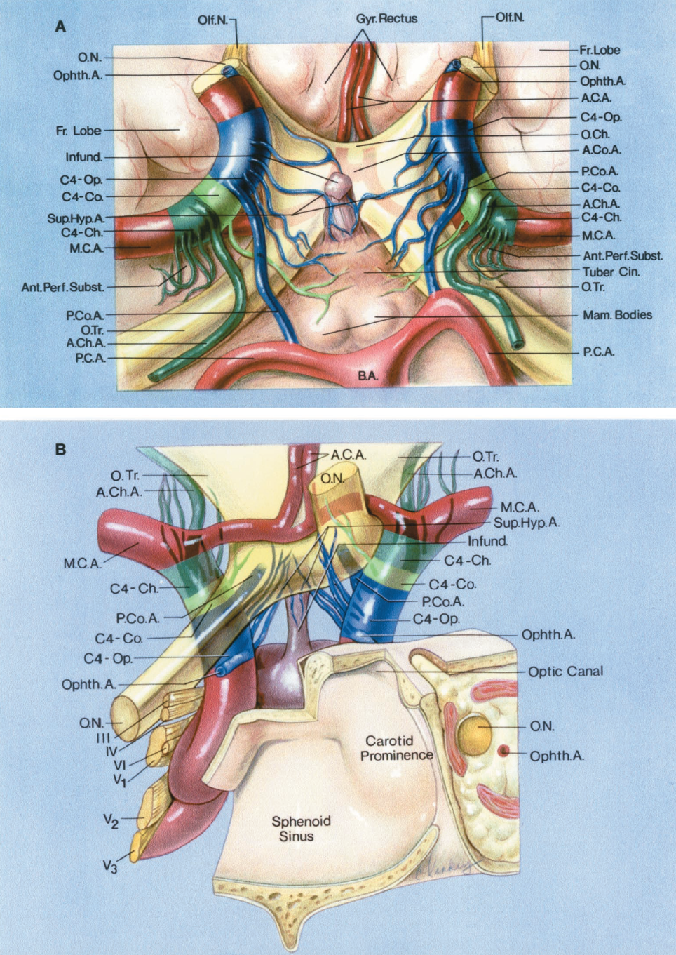 FIGURE 2.4 A-B. Perforating branches of the ICA. A, inferior view. The internal carotid artery gives rise to the ophthalmic, posterior communicating, anterior choroidal, anterior cerebral, and the middle cerebral arteries. The supraclinoid portion of the ICA is divided into three segments based on the origin of these branches: an ophthalmic segment (C4-Op., blue) that extends from the origin of the ophthalmic artery to the origin of the PComA; a communicating segment (C4-Co., light green) that extends from the origin of the PComA to the origin of the AChA; and a choroidal segment (C4-Ch., dark green) that extends from the origin of the AChA to the bifurcation of the ICA into the anterior and middle cerebral arteries. The perforating branches arising from the ophthalmic segment extend to the optic nerve, optic chiasm and the optic tracts, and the floor of the third ventricle around the infundibulum and tuber cinereum. The superior hypophyseal arteries arise from theophthalmic segment and extend to the infundibulum of the pituitary gland. The branches arising from the communicating segment reach the optic tracts, floor of the third ventricle, and the area around the mamillary bodies. The perforating branches of the choroidal segment pass upward and enter the anterior perforated substance. The posterior cerebral arteries arise from the basilar artery and pass backward below the optic tracts. The ACA and AComA course above the optic chiasm and pass between the frontal lobes. The olfactory nerves are lateral to the gyrus rectus. B, anterior view. The left optic nerve has been divided near its entrance into the optic canal and elevated to give a clearer view of the perforating branches. The ophthalmic artery arises above the cavernous sinus. The carotid artery courses through the cavernous sinus and then laterally and produces a prominence in the wall of the sphenoid sinus before giving rise to the ophthalmic artery. The oculomotor, trochlear, abducens, and the ophthalmic