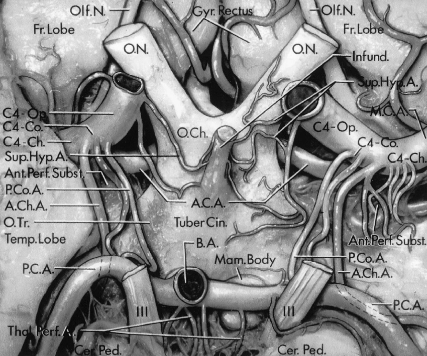 FIGURE 2.6. Inferior view of the perforating branches of the supraclinoid portion of the internal carotid artery. The supraclinoid portion of the artery gives rise to the posterior communicating, anterior choroidal, middle cerebral, and anterior cerebral arteries. The supraclinoid portion of the artery is divided into three segments based on the site of origin of these branches: an ophthalmic segment (C4-Op.) that extends from the origin of the ophthalmic artery (not shown because the ICA was divided above the level of origin of the ophthalmic artery) to the origin of the PComA; a communicating segment (C4-Co.) that extends from the origin of the PComA to the origin of the AChA; and a choroidal segment (C4-Ch.) that extends from the origin of the AChA to the level of the bifurcation of the ICA into the anterior cerebral and middle cerebral arteries. The ophthalmic segment sends perforating branches to the optic nerves, optic chiasm, and the tuber cinereum. The superior hypophyseal arteries pass to the infundibulum of the hypophysis. The communicating segment sends one perforating branch on each side to the optic tracts and the region around the mamillary bodies. The perforating arteries are as large as the adjacent AChA and PComA. The choroidal segment sends its perforating branches into the anterior perforated substance. The posterior cerebral arteries arise from the basilar artery and pass laterally around the cerebral peduncles. The temporal lobe is lateral to the carotid artery. The frontal lobes, gyrus rectus, and olfactory nerves are above the optic nerves. The thalamoperforating arteries pass posteriorly between the oculomotor nerves. A., artery; A.C.A., anterior cerebral artery; A.Ch.A., anterior choroidal artery; Ant., anterior; B.A., basilar artery; Cer.A., cerebral artery; Ch., chiasm, choroidal; Co., communicating; Fr., frontal; Gyr., gyrus; Hyp., hypophyseal; Infund., infundibulum; M.C.A., middle cerebral artery; Mam., mamillary; N., nerve; O., optic; O