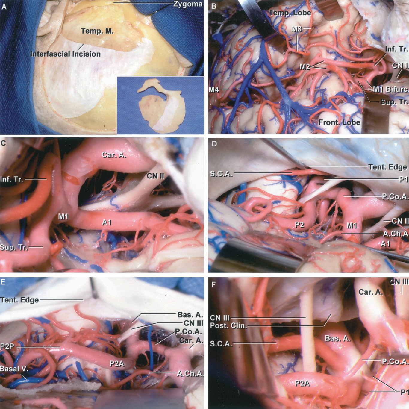 FIGURE 2.7. Orbitozygomatic exposure of the arteries forming the circle of Willis including three variants (D, E, and F) in the size of the PComA. A, the scalp flap has been elevated and the interfascial incision has been completed so that the fat pad containing the branches of the facial nerve to the forehead can be folded downward with the scalp flap. The one-piece orbitozygomatic bone flap is shown in the inset. B, the sylvian fissure has been opened. The M1 bifurcates to form superior and inferior trunks of similar size. The branches forming the M2 begin at the limen insula and cross the insula. The branches forming the M3 loop over the opercular lips, and the M4 branches course on the lateral convexity. C, enlarged view of the carotid bifurcation. The M1 divides into superior and inferior trunks before reaching the limen insula, which is located at the lateral edge of the anterior perforated substance. A large A1 passes medially above the chiasm. D, the exposure has been directed under the temporal lobe. A large PComA of the fetal type provides the majority of flow to the P2 segment. As the PComA increases in size, it tends to shift laterally. The junction of the posterior communicating and P2 is situated medial to the oculomotor nerve. The tentorial edge has been depressed to expose the superior cerebellar artery. E, another subtemporal exposure showing a configuration in which the P1 and PComA are of approximately equal size. F, exposure oriented like C, showing a small PComA with the predominant P2 origin being from the P1. A., artery; A.Ch.A., anterior choroidal artery; Bas., basilar; Bifurc., bifurcation; Car., carotid; Clin., clinoid; CN, cranial nerve; Front., frontal; Inf., inferior; M., muscle; P.Co.A., posterior communicating artery; Post., posterior; S.C.A., superior cerebellar artery; Sup., superior; Temp., temporal, temporalis; Tent., tentorial; Tr., trunk; V., vein.
