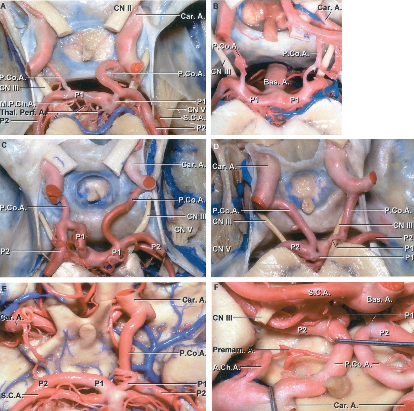 FIGURE 2.8. Variations in the posterior circle of Willis include differing lengths and diameters of the PComAs or P1s. A, superior view. The left PComA is hypoplastic and the right is larger than its corresponding P1. The left PComA is straight and short and the right is long and convex medially. The right P2 segment is a direct continuation of the PComA. An MPChA courses medial to the left P2. Thalamoperforating branches arise at the basilar bifurcation. B, both P1s arise predominantly from the basilar artery. The hypoplastic PComAs course above and medial to the oculomotor nerves. C, the right PComA and P1 are of approximately equal size, and the junction of the PComA and the P2 is sharply angulated. The left P1 is directed anterior before joining the junction of the P2 and the PComA. The right PComA is much longer than the left. D, the right P1 arises predominantly from the PComA. The right P1 segment is small and short, being only long enough to reach above the oculomotor nerve. The left PComA and P1 are of approximately equal size, but the left P1 is short. The junction of the PComAs and the P2s are sharply angulated on both sides. E, inferior view. The left P1 is hypoplastic and the left P2 arises mainly from the PComA. The right PCA arises predominantly from the basilar artery. F, large tortuous PComAs almost touch in the midline. The P2s arise predominantly from the large PComAs, which are larger than the P1 segments. Premamillary perforating branches of the PComA arise on both sides. A., artery; A.Ch.A., anterior choroidal artery; Bas., basilar; Car., carotid; CN, cranial nerve; M.P.Ch.A., medial posterior choroidal artery; P.Co.A., posterior communicating artery; Premam., premamillary; S.C.A., superior cerebellar artery; Thal. Perf., thalamoperforating.