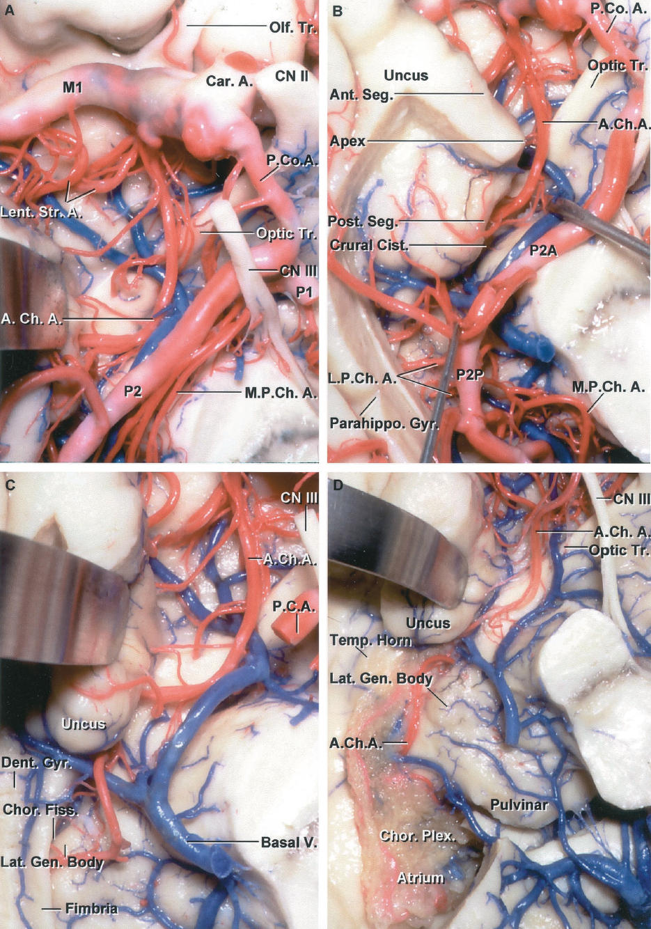 FIGURE 2.9. Anterior choroidal artery. Inferior views. A, the right AChA arises from the posterior wall of the ICA above the origin of the PComA and passes backward below the optic tract and lateral to the PCA. It ascends around the medial surface of the uncus as it travels posteriorly. B, the medial part of the parahippocampal gyrus has been removed. The AChA courses backward medial to the anterior segment of the uncus to reach the uncal apex located at the junction of the anterior and posterior uncal segments where it turns laterally along the upper margin of the posterior uncal segment to reach the choroidal fissure. C, the posterior uncal segment has been retracted. The AChA passes above the posterior uncal segment and enters the temporal horn by passing through the choroidal fissure located between the thalamus above and fimbria of the fornix below. The lateral geniculate body forms the part of the thalamus above where the artery enters the choroidal fissure. The dentate gyrus is located at the lower edge of the fimbria. D, the floor of the temporal horn and the fimbria have been removed to expose the AChA entering the choroid plexus of the temporal horn by passing through the choroidal fissure just behind the posterior segment of the uncus. The lower end of the choroidal fissure and the site where the artery passes through the fissure are called the inferior choroidal point. A., arteries, artery; A.Ch.A., anterior choroidal artery; Ant., anterior; Car., carotid; Chor., choroid, choroidal; Cist., cistern; CN, cranial nerve; Dent., dentate; Fiss., fissure; Gen., geniculate; Gyr., gyrus; L.P.Ch.A., lateral posterior choroidal artery; Lat., lateral; Lent. Str., lenticulostriate; M.P.Ch.A., medial posterior choroidal artery; Olf., olfactory; P.C.A., posterior cerebral artery; P.Co.A., posterior communicating artery; Parahippo., parahippocampal; Plex., plexus; Post., posterior; Seg., segment; Temp., temporal; Tr., tract; V., vein.