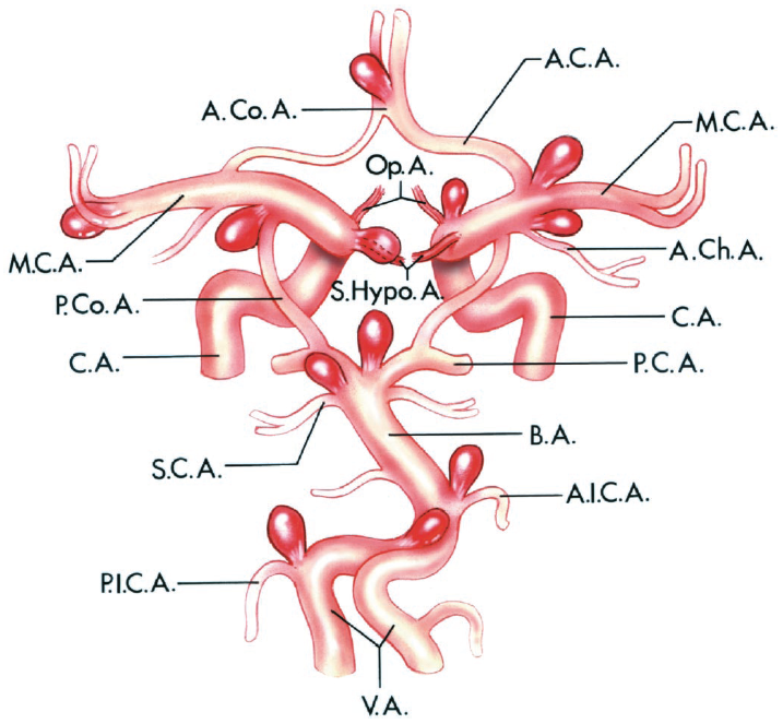 FIGURE 3.1. Most-common sites of saccular aneurysms. Each aneurysm arises from the branching site of a large artery. Most are located on or near the circle of Willis. More than 90% are located at one of the following five sites: (a) the internal carotid artery at the level of the posterior communicating artery; (b) the junction of the anterior cerebral and anterior communicating arteries; (c) the proximal bifurcation of the middle cerebral artery; (d) the junction of the posterior cerebral and basilar arteries, and (e) the bifurcation of the carotid artery into the anterior cerebral and middle cerebral arteries. Other aneurysm sites on the carotid artery are at the origins of the ophthalmic, superior hypophyseal, and anterior choroidal arteries. Other sites on the vertebral and basilar arteries include the sites of origin of the anteroinferior cerebellar, posteroinferior cerebellar, and the superior cerebellar arteries and the junction of the basilar and vertebral arteries. A.C.A., anterior cerebral artery; A.Ch.A., anterior choroidal artery; A.Co.A., anterior communicating artery; A.I.C.A., anteroinferior cerebellar artery; B.A., basilar artery; C.A., internal carotid artery; M.C.A., middle cerebral artery; Op.A., ophthalmic artery; P.C.A., posterior cerebral artery; P.Co.A., posterior communicating artery; P.I.C.A., posteroinferior cerebellar artery; S.C.A., superior cerebellar artery; S.Hypo. A., superior hypophyseal artery; V.A., vertebral artery.