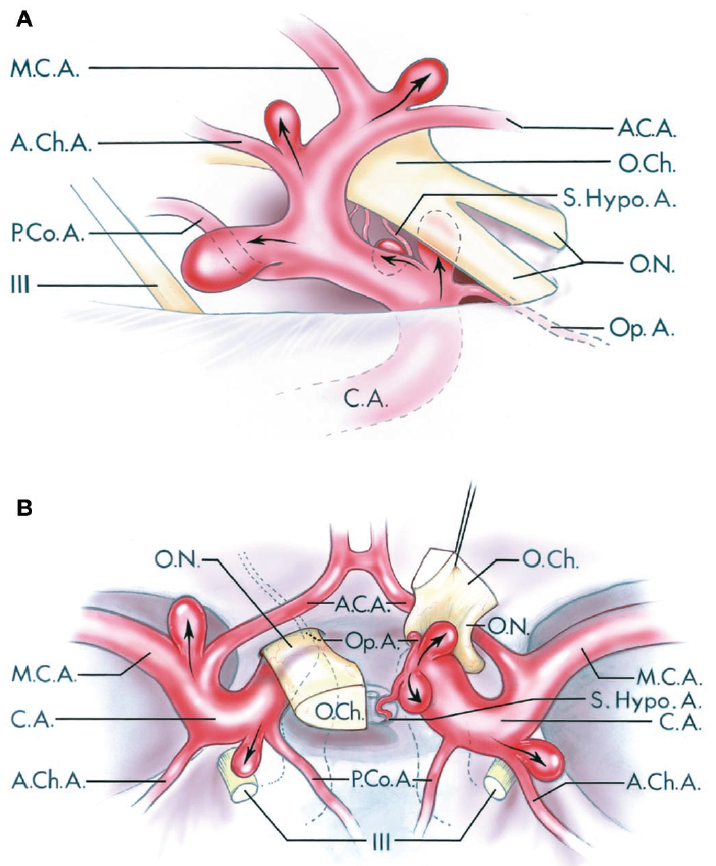 FIGURE 3.2. Lateral (A) and superior (B) views of common aneurysm sites on the supraclinoid portion of the internal carotid artery. A, lateral view of the right internal carotid artery. B, superior view of the internal carotid arteries, with the right optic nerve and right half of the optic chiasm reflected forward to expose the origin of the ophthalmic artery. The intracavernous portion of both carotid arteries and the course of the left ophthalmic artery are shown by dotted lines. The aneurysms arise on curves in the artery at the site of origin of its branches. The aneurysms point in the direction (arrows) of the maximal hemodynamic force immediately proximal to the aneurysm site and in the direction the blood would have gone if there were no curve at the aneurysm site. The aneurysm sites on the internal carotid artery are usually located immediately distal to the origins of its branches. Aneurysms arising at the origin of the ophthalmic artery point upward into the optic nerve. Aneurysms arising at the origin of the superior hypophyseal artery point medially under the optic chiasm. Aneurysms arising near the origin of the posterior communicating artery point posteriorly toward the oculomotor nerve and are usually located superolateral to the posterior communicating artery. Aneurysms arising near the origin of the anterior choroidal artery point posterolaterally and are usually located immediately superior to the origin of the anterior choroidal artery. Aneurysms arising at the carotid bifurcation into the anterior and middle cerebral arteries point upward lateral to the optic chiasm toward the anterior perforated substance. A.C.A., anterior cerebral artery; A.Ch.A., anterior choroidal artery; C.A., internal carotid artery; M.C.A., middle cerebral artery; O.Ch., optic chiasm; O.N., optic nerve; Op.A., ophthalmic artery; P.Co.A., posterior communicating artery; S.Hypo.A., superior hypophyseal artery.