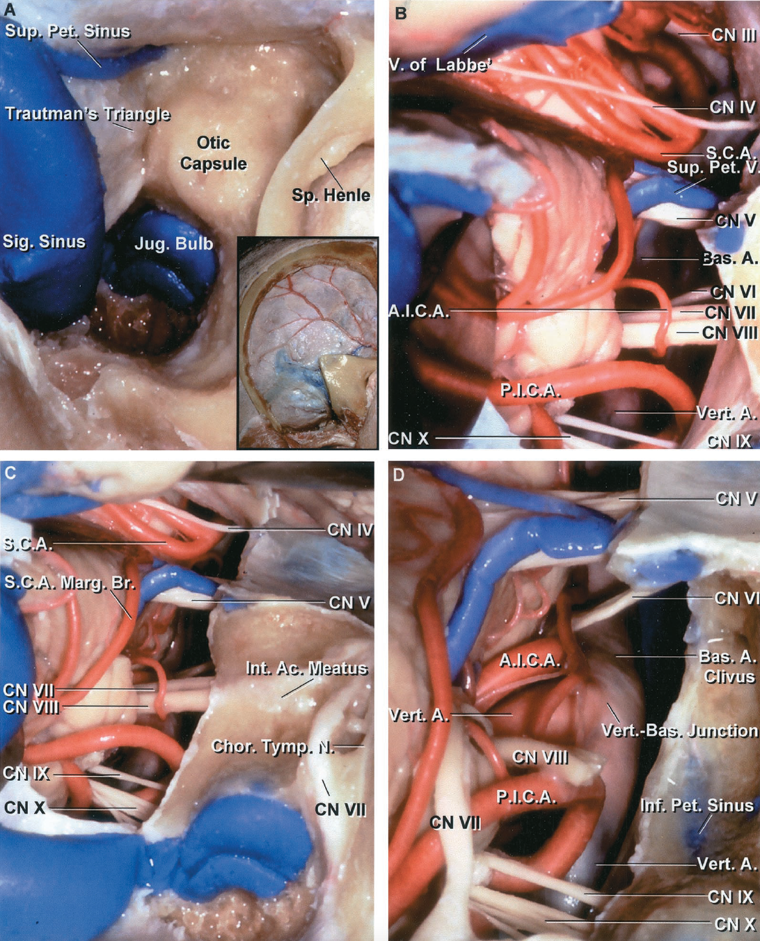 FIGURE 3.27. Combined supra- and infratentorial presigmoid approach. A, the inset shows the right temporo-occipital craniotomy and the mastoid exposure. The mastoidectomy has been completed and the otic capsule, composed of the dense cortical bone around the labyrinth, has been exposed. The tympanic segment of the facial nerve and the lateral canal are situated deep to the spine of Henle. Trautmann's triangle, the patch of dura in front of the sigmoid sinus, faces the cerebellopontine angle. B, the presigmoid dura has been opened and the superior petrosal sinus and tentorium divided, with care taken to preserve both the vein of Labbé that joins the transverse sinus and the trochlear nerve that enters the anterior edge of the tentorium. The abducens and facial nerves are exposed medially to the vestibulocochlear nerve. The posteroinferior cerebellar artery courses in the lower margin of the exposure with the glossopharyngeal and vagus nerves. The superior cerebellar artery passes below the oculomotor and trochlear nerves and above the trigeminal nerve. C, the labyrinthectomy has been completed to expose the internal acoustic meatus. A marginal branch of the superior cerebellar artery loops downward on the cerebellum. D, the dura lining the meatus has been opened and the facial nerve has been transposed posteriorly. The cochlear nerve has been divided and bone removed to expose and remove the cochlea. The transcochlear exposure, completed by removing the cochlea and surrounding petrous apex, provides access to the front of the brainstem and vertebrobasilar junction, but at the cost of loss of hearing caused by the labyrinthectomy and almost certain temporary or permanent facial weakness associated with the transposition of the facial nerve. A., artery; Ac., acoustic; A.I.C.A., anteroinferior cerebellar artery; Bas., basilar; Br., branch; Chor., chorda; CN, cranial nerve; Inf., inferior; Int., internal; Jug., jugular; Marg., marginal; N., nerve; P.I.C.A., posteroinferi
