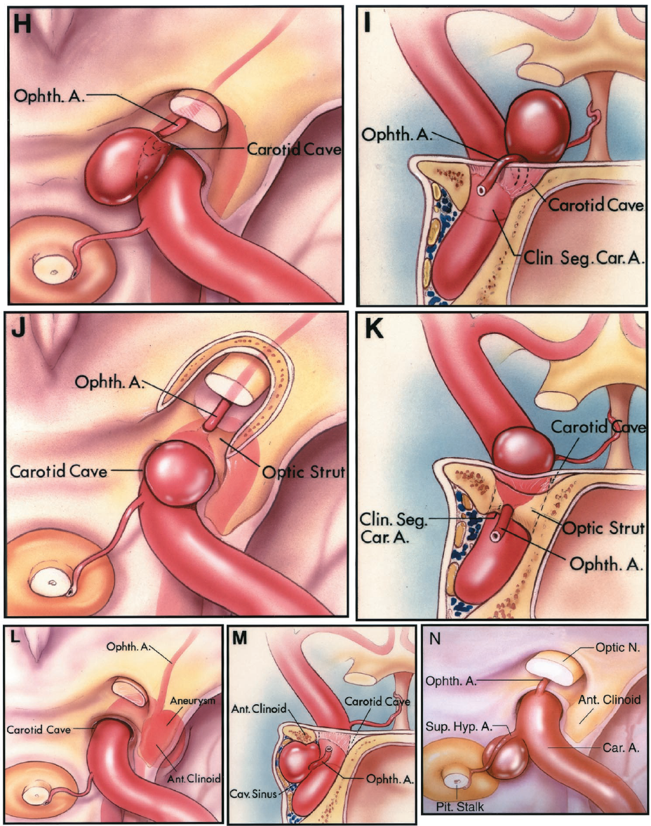 FIGURE 3.6. H-N. H and I, superior and anterior views of an aneurysm arising below the upper dural ring, within the carotid cave. This aneurysm projects upward out of the carotid cave toward the optic nerve and has the upper dural ring around its base. J and K, superior and anterior views of an ophthalmic aneurysm that arises in association with an ophthalmic artery, having its origin in the carotid cave and passing through a foramen in the optic strut to reach the optic canal. This aneurysm neck is located further laterally than the typical ophthalmic aneurysm. The aneurysm projects upward out of the cave into the subarachnoid space. L and M, superior and anterior views of an aneurysm that arises at the ophthalmic artery origin in the cavernous sinus. This ophthalmic artery passes through the superior orbital fissure to reach the orbit. This aneurysm arises below the clinoid segment and carotid cave and projects upward against the lower margin of the anterior clinoid process and does not reach the subarachnoid space. N, superior view of superior hypophyseal aneurysm. The aneurysm arises at the distal edge of the origin of the superior hypophyseal artery and points medially under the optic chiasm. A., artery; A.C.A., anterior cerebral artery; Ant., anterior; Car., carotid; Cav., cavernous; Clin., clinoid; Fiss., fissure; Hyp., hypophyseal; M.C.A., middle cerebral artery; N., nerve; Ophth., ophthalmic; Pit., pituitary; Seg., segment; Sup., superior.