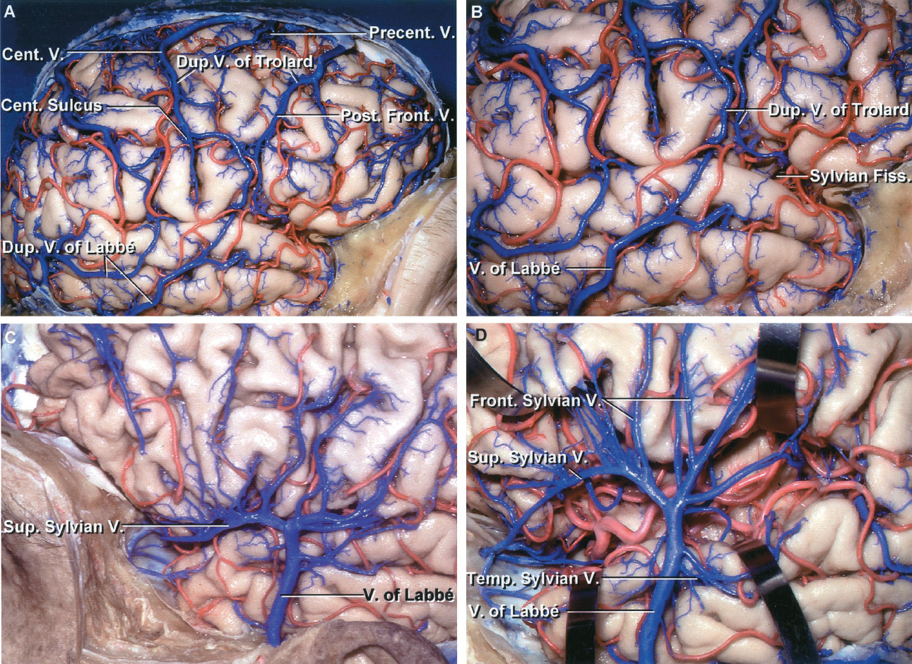 FIGURE 4.12. A-D. Lateral view. Comparison of drainage pattern along the sylvian fissure on the right side (A and B) and left side (C and D) of the same brain. A, right lateral view. There is no significant superficial sylvian vein. The veins draining the frontal and parietal areas are relatively evenly dispersed over the frontal and parietal lobes and drain predominantly into the superior sagittal sinus. There are two, or duplicate, veins of nearly equal size that cross from the sylvian fissure to the transverse sinus and fit the description of a vein of Labbé. Central and posterior frontal veins of approximately the same size connect the sylvian fissure and superior sagittal sinus, and together constitute a duplicate vein of Trolard. The lower part of the central vein passes along the central sulcus. B, enlarged view of sylvian fissure. Duplicate veins of Labbé and Trolard drain much of the area along the sylvian fissure. C, left side. There is a large superficial sylvian vein that has minimal connections with the superior sagittal sinus; however, a significant part of the drainage from this area is directed through a vein of Labbé that crosses the midtemporal area. D, the sylvian fissure has been opened below the superficial sylvian vein that empties anteriorly into the sphenoparietal sinus coursing below the sphenoid ridge and posteriorly into a large vein of Labbé.