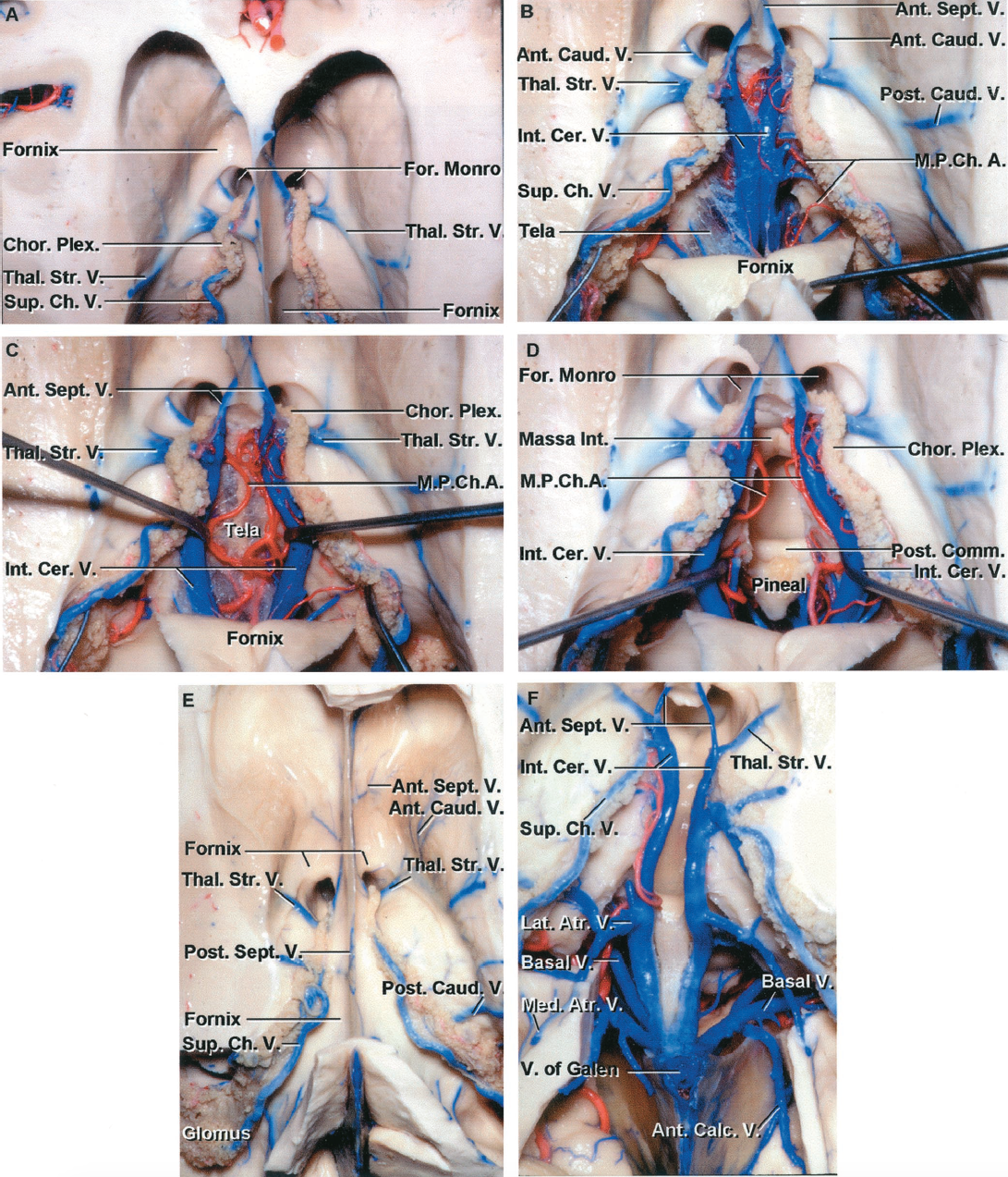 FIGURE 4.18. Internal cerebral veins in the roof of the third ventricle. A, superior view of the frontal horn and body. The thalamostriate and superior choroidal veins converge on the posterior edge of the foramen of Monro. The superior and anterior margin of the foramen of Monro is formed by the fornix. B, the fornix has been folded backward to expose the tela choroidea and the internal cerebral veins in the roof of the third ventricle. A thin layer of ependyma extends above and partially hides the thalamostriate veins coursing along the sulcus between the thalamus and caudate nucleus. The anterior caudate and anterior septal veins cross the lateral and medial wall of the frontal horn. The posterior caudate veins cross the lateral wall of the body of the ventricle. Only a small part of the upper layer of tela located between the fornix and internal cerebral veins remains. C, the internal cerebral veins have been separated to expose the branches of the medial posterior choroidal artery and the lower layer of tela choroidea that forms the floor of the velum interpositum in the roof of the third ventricle. The lower wall of the velum interpositum, in which the internal cerebral veins and medial posterior choroidal arteries course, is formed by the layer of tela attached along the medial side of the thalamus to the striae medullaris thalami. D, the lower layer of tela has been opened and the internal cerebral veins and the medial posterior choroidal arteries have been retracted to expose the posterior commissure, pineal gland, and massa intermedia. E, another hemisphere. The upper part of the hemisphere has been removed to expose the frontal horn, body and atrium of the lateral ventricle. The choroid plexus is attached along the choroidal fissure. The anterior and posterior caudate veins cross the lateral wall and the anterior and posterior septal veins cross the medial wall of the frontal horn and body of the lateral ventricle. The superior choroidal veins course along the choroid plexus. The thalamostriate veins pass through the posterior margin of the foramen of Monro. The choroid plexus in the atrium expands to a large tuft called the glomus. F, the body of the fornix has been removed to expose the internal cerebral veins coursing in the roof the third ventricle. The medial and lateral atrial and anterior calcarine veins join the posterior end of the internal cerebral veins. The basal veins are exposed below and lateral to the internal cerebral veins. Ant., anterior; Atr., atrial; Calc., calcarine; Caud., caudate; Cer., cerebral; Ch., choroidal; Chor., choroid; Comm., communicating; For., foramen; Int., intermedia, internal; Lat., lateral; Med., medial; Plex., plexus; M.P.Ch.A., medial posterior choroidal artery; Post., posterior; Sept., septal; Sup., superior; Thal.Str., thalamostriate; V., vein.