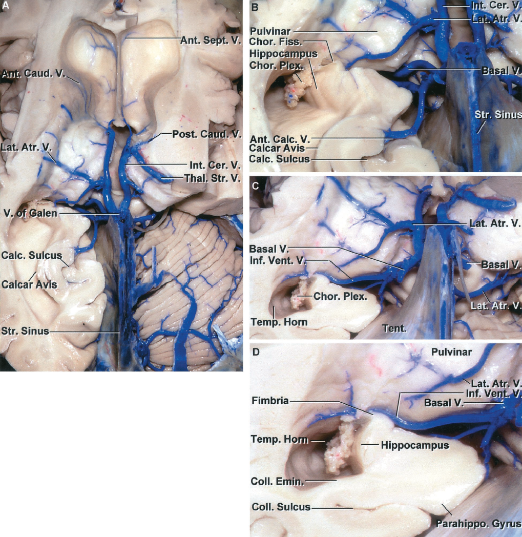FIGURE 4.19. A, posterosuperior view of the ventricles with the upper part of the cerebral hemisphere removed. The right occipital lobe and the adjacent tentorium have been removed to expose the upper surface of the cerebellum. Anterior caudate and anterior septal veins drain the walls of the frontal horn and empty into the anterior end of the internal cerebral vein. The posterior caudate veins drain the lateral wall of the body of the ventricle. B, enlarged view. The internal cerebral and basal veins converge on the vein of Galen. The lateral atrial vein crosses the pulvinar and empties into the internal cerebral vein. The anterior calcarine vein drains the depths of the calcarine sulcus and joins the vein of Galen near its junction with the basal vein. The calcarine sulcus forms a prominence, the calcar avis, in the medial wall of the atrium. The posterior end of the hippocampus is located at the anterior edge of the calcar avis. The veins exiting the ventricle pass through the margins of the choroidal fissure located between the fornix and thalamus. C, the section of the left cerebrum has been extended forward into the temporal horn and hippocampus. The inferior ventricular vein drains the roof of the temporal horn and passes through the choroidal fissure to empty into the basal vein. The lateral atrial vein crosses the posterior surface of the pulvinar to empty into the internal cerebral vein. Only the stump of the basal vein remains. D, enlarged view of the inferior ventricular vein passing through the choroidal fissure located between the fimbria and lower surface of the pulvinar, to join the basal vein. The deep end of the collateral sulcus, located on the lateral margin of the parahippocampal gyrus, forms a prominence, the collateral eminence, in the floor of the temporal horn lateral to the hippocampus. Ant., anterior; Atr., atrial; Calc., calcarine; Caud., caudate; Cer., cerebral; Chor., choroid, choroidal; Coll., collateral; Emin., eminence; Fiss., fissure; Inf., inferior; Int., internal; Lat., lateral; Parahippo., parahippocampal; Plex., plexus; Post., posterior; Sept., septal; Str., straight; Temp., temporal; Tent., tentorium; Thal. Str., thalamostriate; V., vein; Vent., ventricular.