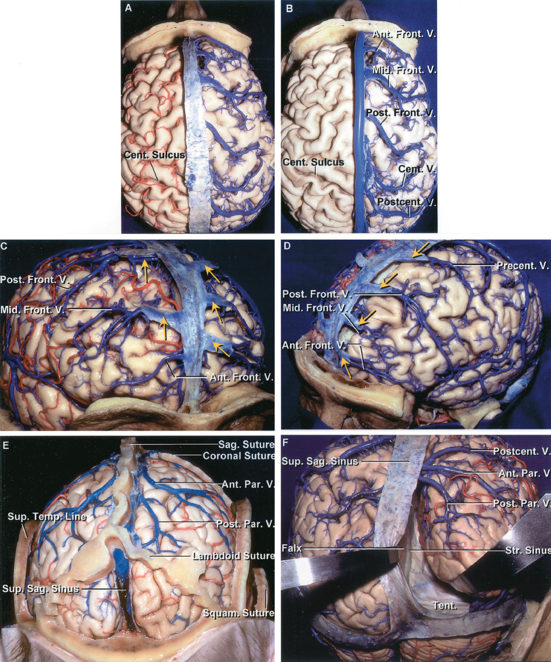 FIGURE 4.2. A, superior view. The dura covering the cerebrum has been removed to expose the cortical veins entering the superior sagittal sinus. The branches of the left anterior and middle cerebral arteries have been preserved. The veins entering the most anterior part of the sagittal sinus are directed slightly posteriorly. Those from the midportion of the frontal lobe enter the sagittal sinus at a right angle and, proceeding posteriorly, the veins entering the sinus are progressively angulated further forward. The central sulcus reaches the superior hemispheric border. B, the arteries on the left side have been removed. The veins entering the posterior part of the sagittal sinus are directed forward. Anterior, middle, and posterior frontal, and central and postcentral veins ascend to the superior sagittal sinus. The posterior frontal vein drains the area normally drained by precentral and posterior frontal veins. C, right anterolateral view. The right middle and posterior frontal veins join sinuses in the dura that empty medially into the superior sagittal sinus. The right anterior frontal vein empties directly into the superior sagittal sinus. Yellow arrows are on two dural sinuses on the right and three on the left side. D, left anterolateral view. The left anterior, middle, and posterior frontal and precentral veins do not pass directly to the superior sagittal sinus, but empty into dural sinuses that cross the upper border of the frontal lobe to reach the superior sagittal sinus. Yellow arrows are on four left dural sinuses. E, posterior view. The veins on the occipital lobe are directed forward so that the area below the lambdoid suture is often completely devoid of bridging veins to the superior sagittal sinus. This often allows the occipital lobe to be retracted away from the sagittal sinus without sacrificing any bridging veins. There is an intrasutural bone in each lambdoid suture. F, another specimen. The lambdoid suture has been removed to show the absence of bridging veins entering the posterior part of the superior sagittal sinus. Right postcentral and anterior and posterior parietal veins empty into the superior sagittal sinus. The right occipital lobe has been retracted to expose the tentorium, falx, and straight sinus. There are no bridging veins between the occipital pole and the superior sagittal or straight sinus. Ant., anterior; Cent., central; Front., frontal; Mid., middle; Par., parietal; Post., posterior; Postcent., postcentral; Precent., precentral; Sag., sagittal; Squam., squamosal; Str., straight; Sup., superior; Temp., temporal; Tent., tentorium; V., vein.