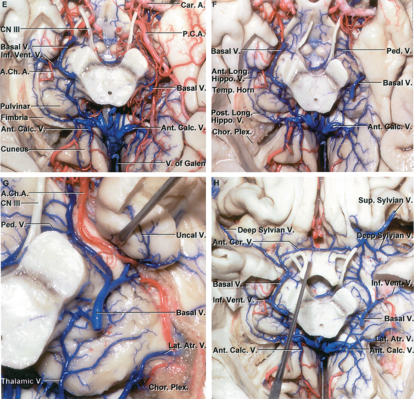 FIGURE 4.21. E-H. E, inferior view of the basal cisterns in the same cerebrum. The medial part of the right parahippocampal gyrus has been removed to expose the temporal horn while preserving the uncus and the fimbria of the fornix. The left posterior cerebral artery and the medial temporal structures have been preserved. The lower lip of the right calcarine sulcus has been removed to expose the cuneus and anterior calcarine veins. The basal vein courses posteriorly around the cerebral peduncle and below the thalamus. The right anterior choroidal artery passes between the lateral geniculate body and the fimbria to reach the choroid plexus in the temporal horn. The left basal vein courses above the posterior cerebral artery. F, the left posterior cerebral artery has been removed to expose the basal vein. The anterior part of the left basal vein is hidden deep to the uncus. The right anterior and posterior longitudinal hippocampal veins course along the fimbria. G, the lower part of the posterior segment of the left uncus plus the parahippocampal gyrus and fimbria have been removed to expose the roof of the left temporal horn. The posterior segment of the left basal vein is missing, because the anterior part drained into a sinus in the tentorial that has been removed instead of draining into the vein of Galen. Uncal veins converge on the basal vein, as does the peduncular vein. The lateral atrial and thalamic veins converge on the calcarine vein. H, overview. The sylvian veins join the anterior cerebral veins to form the anterior end of the basal vein. The anterior cerebral veins are connected above the optic chiasm by the anterior communicating veins. The anterior segment of the right basal vein is larger than the left. The left atrial veins join the anterior calcarine vein before emptying into the vein of Galen. A., artery; A.C.A., anterior cerebral artery; A.Ch.A., anterior choroidal artery; Ant., anterior; Atr., atrial; Calc., calcarine; Car., carotid; Cer., cerebral; Chor., choroid; CN, cranial nerve; Comm., communicating; Hippo., hippocampal; Inf., inferior; Lat., lateral; Long., longus; Olf., olfactory; Paraterm., paraterminal; P.C.A., posterior cerebral artery; Ped., peduncle; Perf., perforated; Plex., plexus; Post., posterior; Subst., substance; Sup., superior; Temp., temporal; Tr., tract; V., vein; Vent., ventricular.