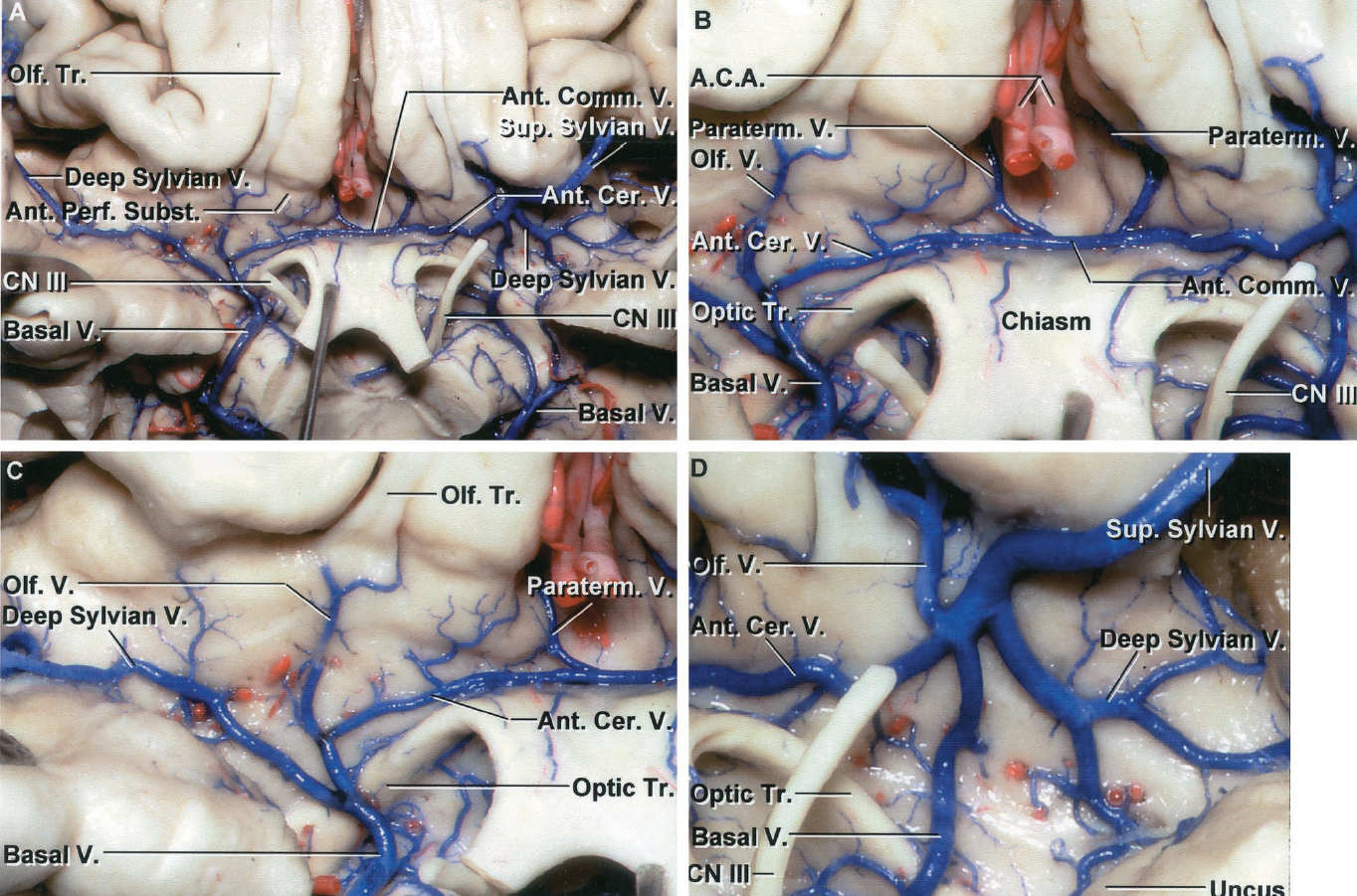 FIGURE 4.21. A-D. Territory of the basal vein. A, inferior view of the frontal lobe and anterior perforated substance with the optic chiasm reflected downward. The anterior cerebral veins pass above the optic chiasm and are joined across the midline by an anterior communicating vein. The anterior cerebral veins join the veins draining the posterior part of the orbital surface of the frontal lobe and the superficial and deep sylvian veins to constitute the anterior end of the basal vein. B, enlarged view of the anterior cerebral and anterior communicating veins. Paraterminal veins, draining the cortical areas below the genu of the corpus callosum, join the anterior cerebral veins near the junction with the anterior communicating veins. C, enlarged view of the right deep sylvian and anterior cerebral veins joining below the anterior perforated substance to form the anterior end of the basal vein. D, enlarged view of the large left superficial sylvian and smaller deep sylvian veins joining the anterior cerebral and olfactory veins to empty into the anterior end of the basal vein.