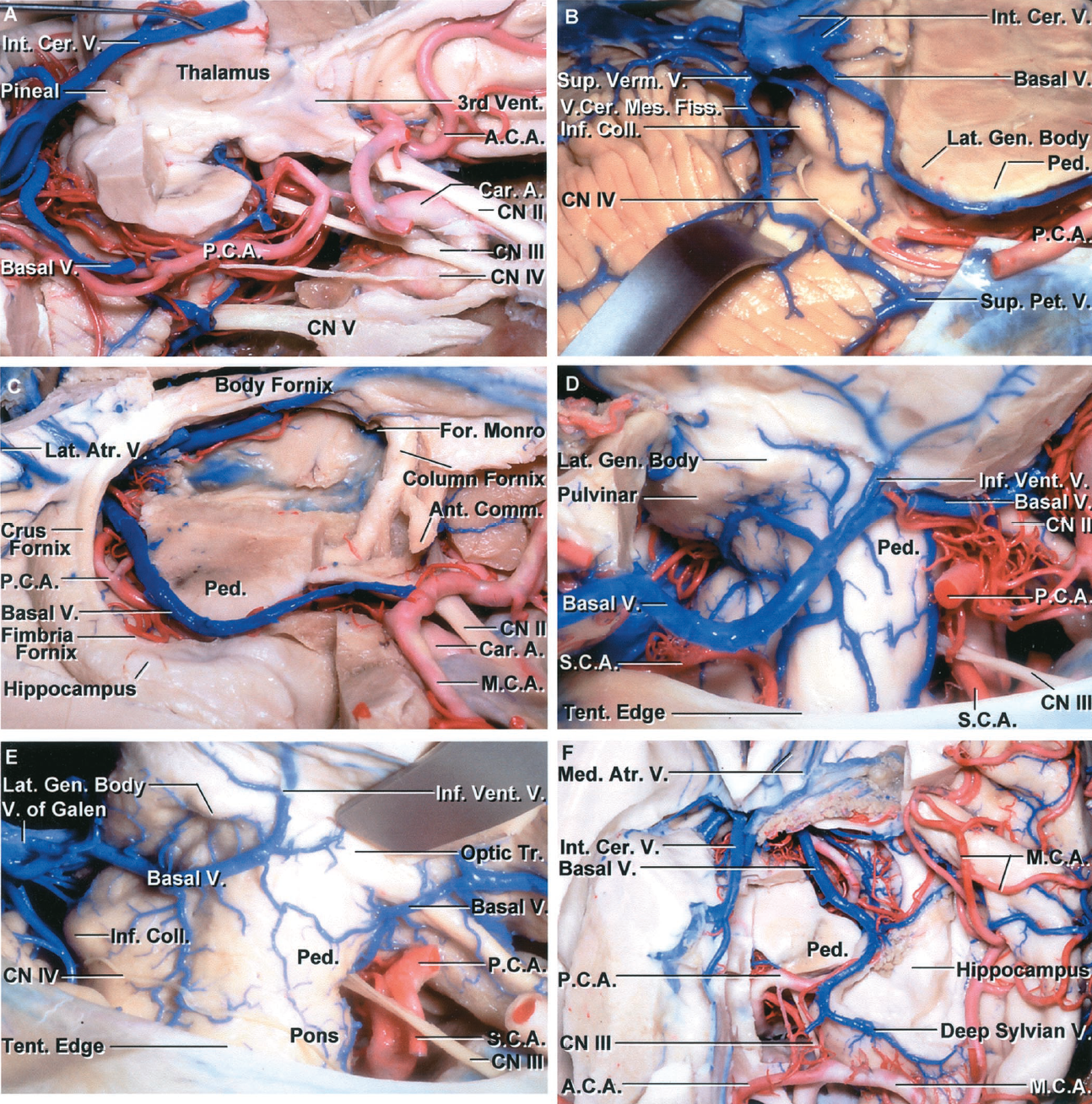 FIGURE 4.22. Basal vein. A, lateral view with the right hemisphere removed. The internal cerebral veins course between the upper parts of the thalami. The basal vein courses posteriorly above the posterior cerebral artery. The nerves in the wall of the cavernous sinus have been exposed. B, superolateral view of the quadrigeminal cistern. The section of the brainstem extends through the cerebral peduncle and lateral geniculate body. The basal vein passes posteriorly above the posterior cerebral artery to join the internal cerebral vein in the quadrigeminal cistern. A vein courses parallel and below the basal vein connecting the veins in the quadrigeminal cistern and cerebellomesencephalic fissure with the superior petrosal veins emptying into the superior petrosal sinus. The trochlear nerve arises below the inferior colliculus. C, the right hemisphere including the thalamus has been removed to expose the basal vein coursing through the crural, ambient, and quadrigeminal cisterns and the internal cerebral veins coursing in the roof of the third ventricle. The hippocampus and fimbria have been preserved. The internal cerebral and basal veins course in close relationship to the fornix. The internal cerebral vein courses below the body of the fornix. The basal vein courses medial to the fimbria and the basal and internal cerebral veins join to form the vein of Galen in the area medial to the crus of the fornix. A column of the fornix and the anterior commissure are at the anterior margin of the exposure. D, the right temporal lobe, including the hippocampus and the choroid plexus, has been removed to expose the right basal vein passing through the ambient and quadrigeminal cistern. The roof of the temporal horn formed by the thalamus and tapetum of the corpus callosum is drained by the inferior ventricular vein that joins the basal vein by passing through the choroidal fissure. This basal vein in this case does not empty into the vein of Galen, but passes laterally below the temporal lobe to empty into a tentorial sinus. E, lateral view of another basal vein. The middle segment of this basal vein is hypoplastic. The posterior segment of the basal vein receives the inferior ventricular vein and passes around the midbrain to empty into the vein of Galen. The anterior part of the territory normally drained by the basal vein empties into the sylvian veins, leaving a hypoplastic midsegment lateral to the peduncle. F, anterosuperior view of the left basal vein coursing through the crural, ambient, and quadrigeminal cisterns. The basal vein arises at the union of the sylvian and anterior cerebral veins and passes posteriorly above the posterior cerebral artery in the crural cistern, located between the peduncle and uncus. It exits the crural cistern to enter the ambient cistern, located between the midbrain and parahippocampal gyrus, and terminates in the quadrigeminal cistern. The third nerve passes below the posterior cerebral artery. Medial atrial veins cross the medial atrial wall and empty into the veins in the quadrigeminal cistern. The internal cerebral vein courses in the roof of the third ventricle. A., artery; A.C.A., anterior cerebral artery; Ant., anterior; Atr., atrial; Car., carotid; Cer., cerebral; Cer.Mes., cerebellomesencephalic; CN, cranial nerve; Coll., collateral; Fiss., fissure; For., foramen; Gen., geniculate; Inf., inferior; Int., internal; Lat., lateral; M.C.A., medial cerebral artery; Med., medial; P.C.A., posterior cerebral artery; Ped., peduncle; Pet., petrosal; S.C.A., superior cerebellar artery; Sup., superior; Tent., tentorial; Tr., tract; V., vein; Vent., ventricle, ventricular; Verm., vermian.
